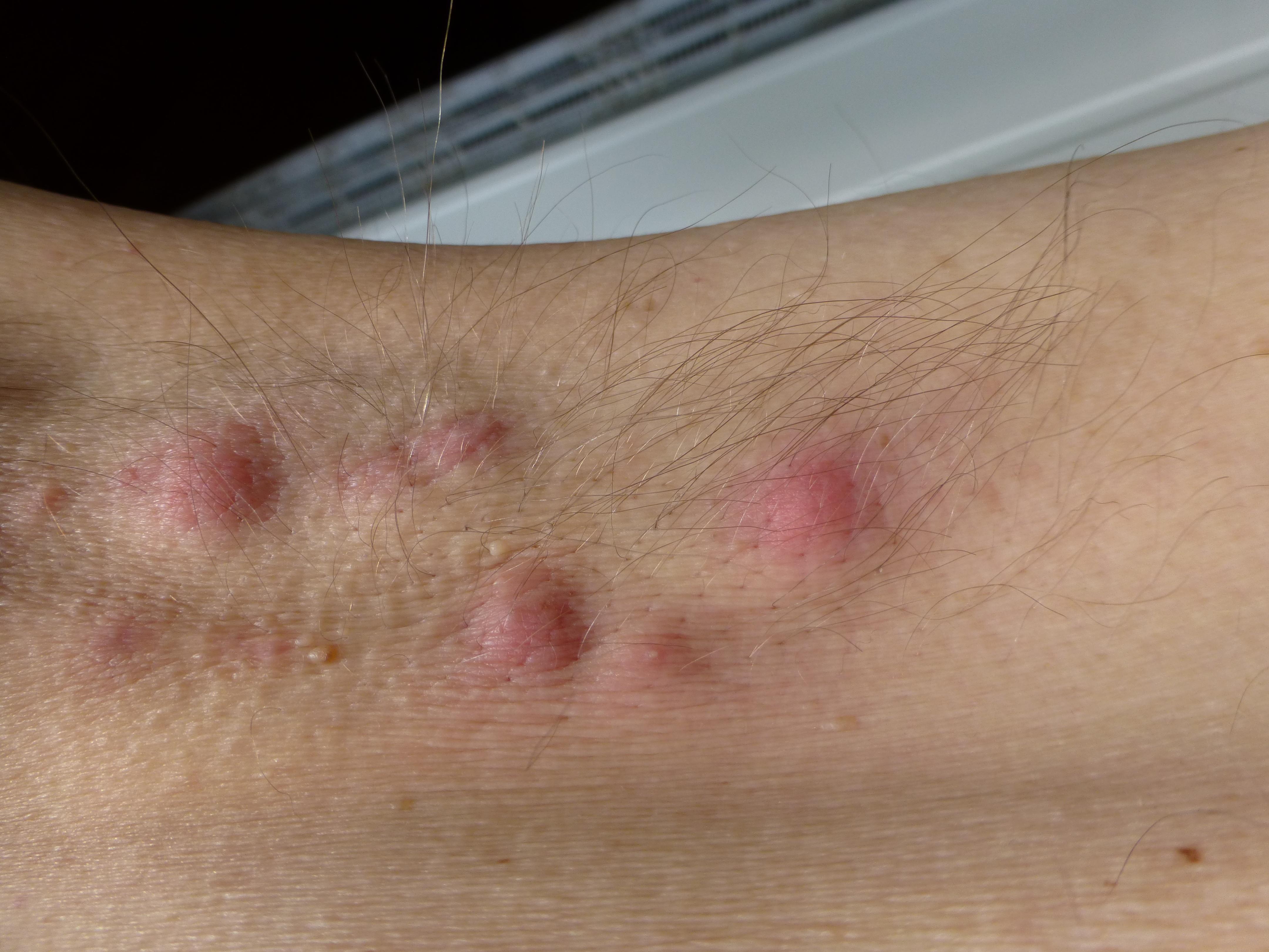 Varböld i armhålan