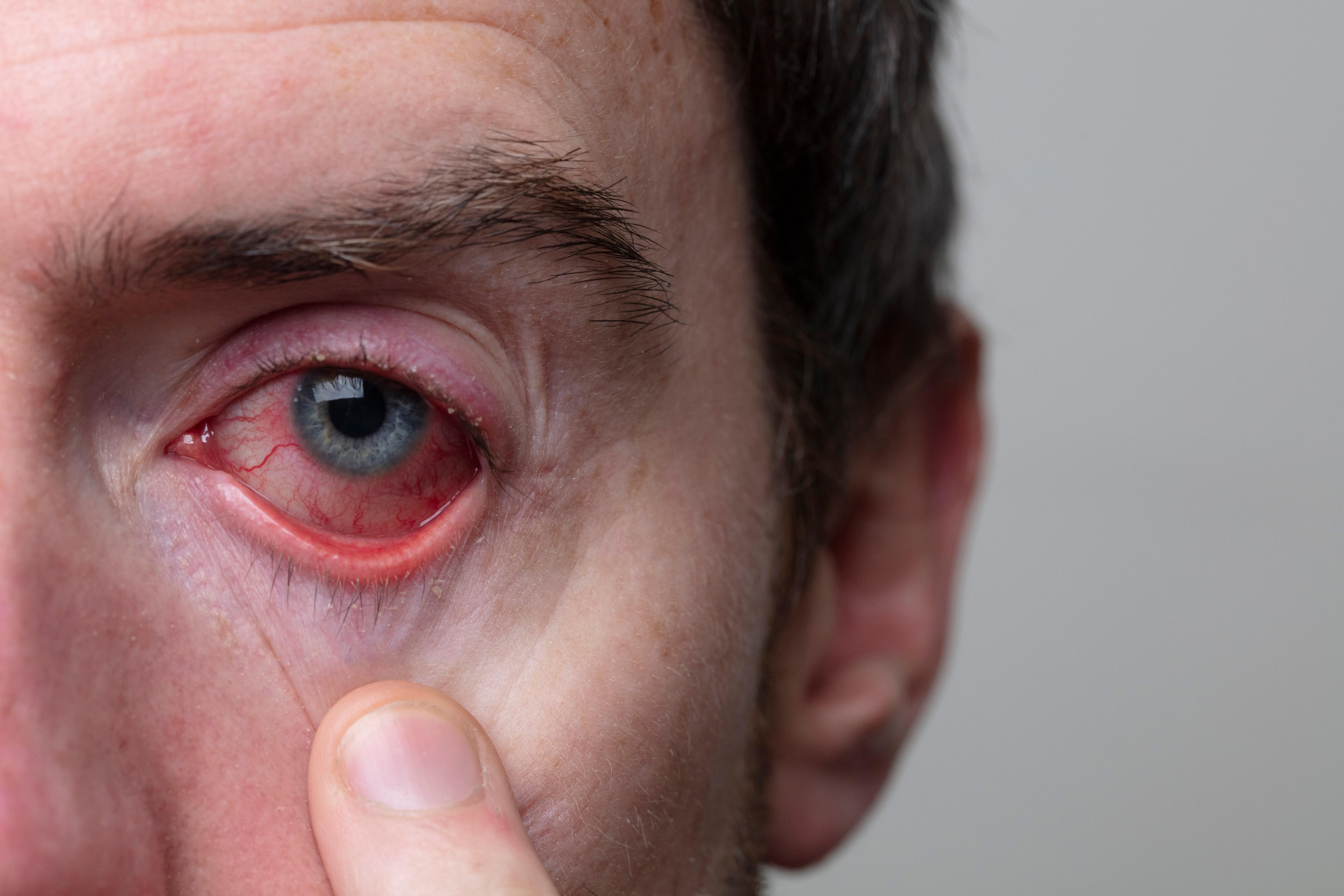 Du ser och upplever ganska snart problem med ögonen och då gäller det att ta dessa på allvar.