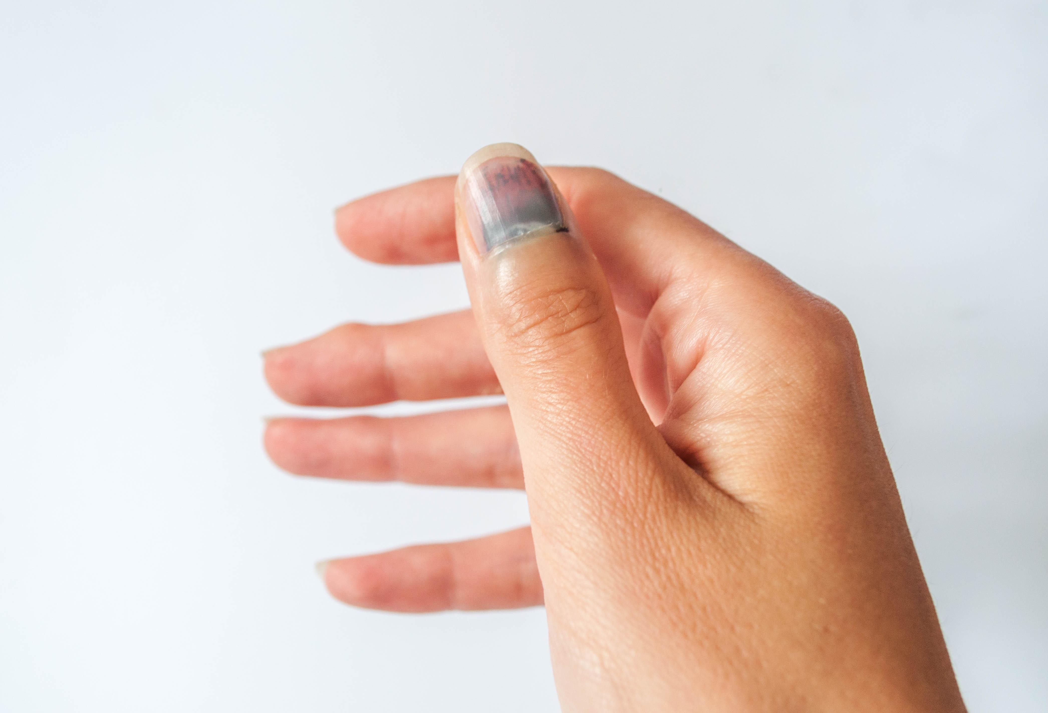Det är inte ovanligt att nageln, vid blå nagel, lossnar från huden efter ett par veckor.