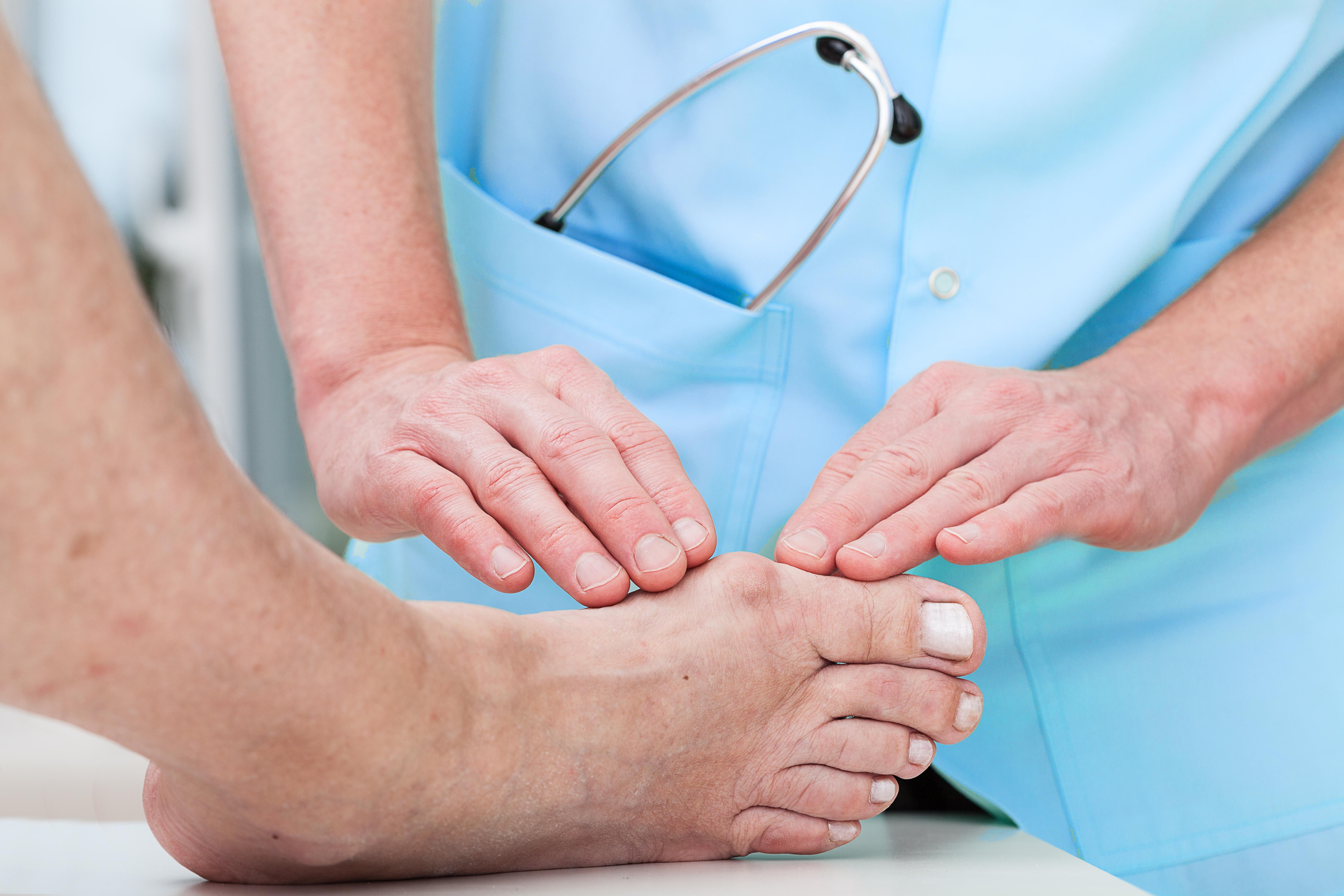 Du som lever med diabetes har rätt till att få dina fötter undersökta en gång per år i vården - prata med din vårdcentral.