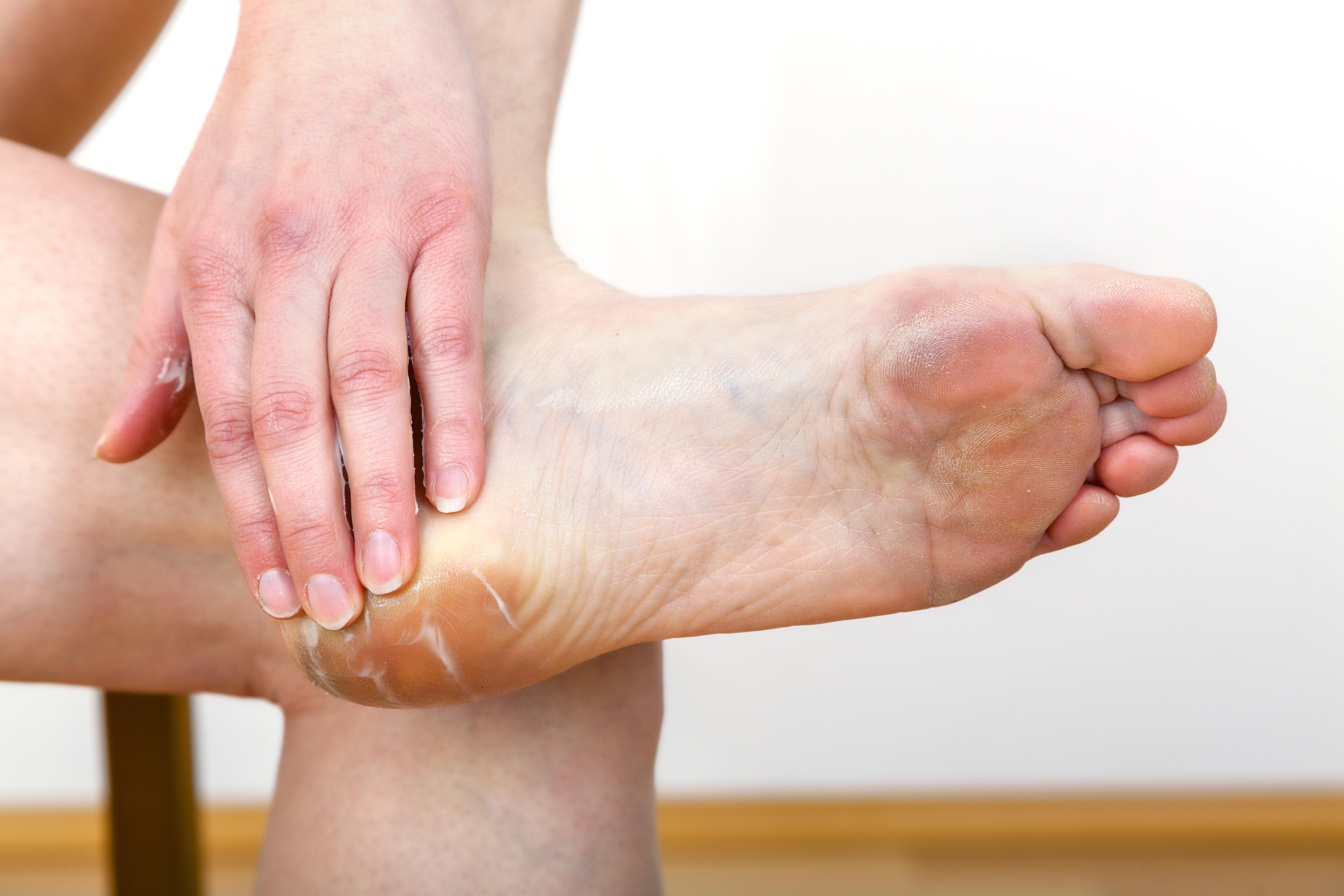 En liktå uppkommer ofta på grund av obekväma skor, och kan behöva opereras bort.