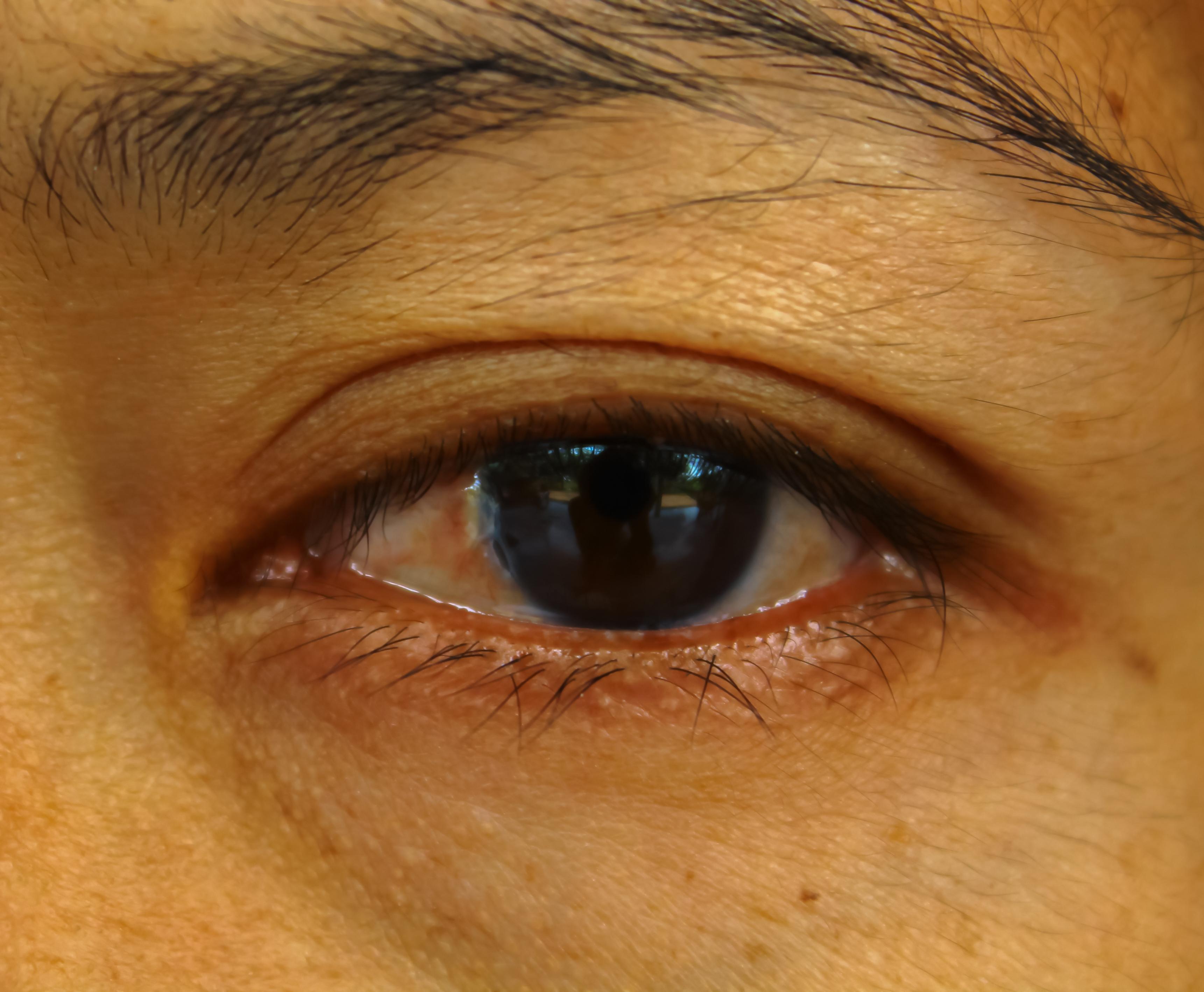 Toppig hornhinna beror på en förtunning av hornhinnan och kan orsaka dubbelseende och ljuskänslighet.