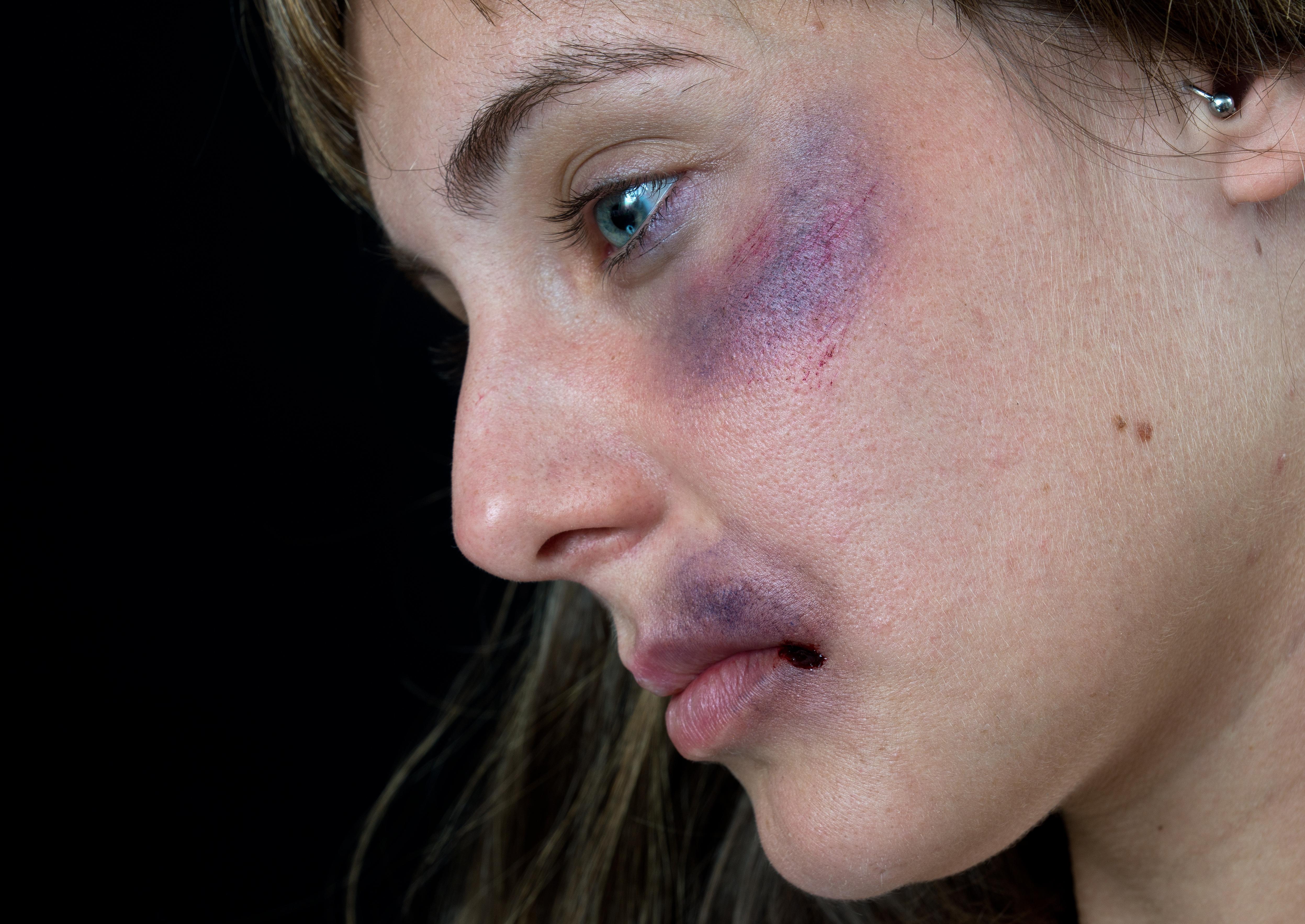 Om man får ett slag mot ögat man kan få en blåtira som orsakas av en blödning under huden.