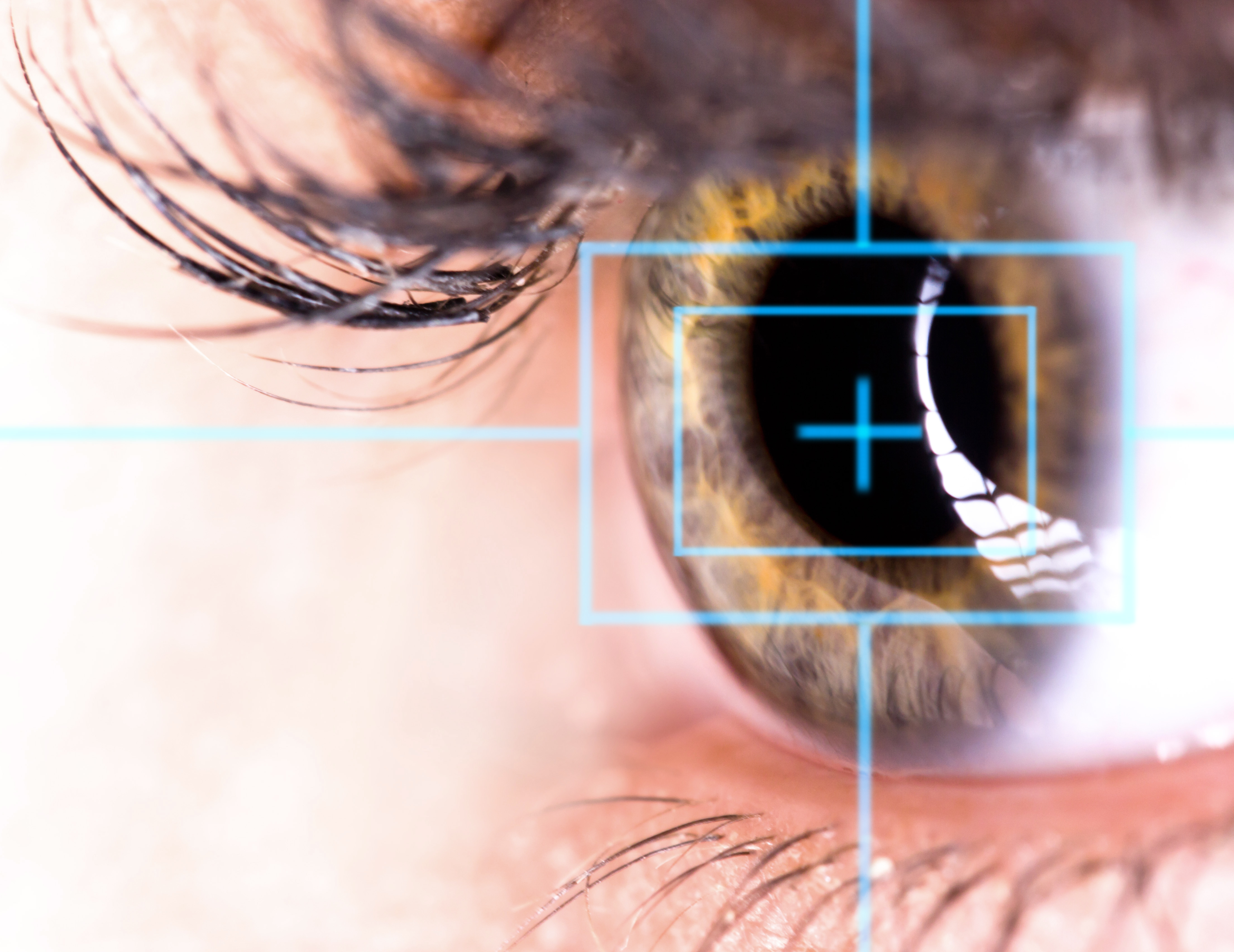 För att korrigera brytningsfel vid närsynthet kan laser användas. Behandlingen görs för att slippa använda glasögon eller linser.