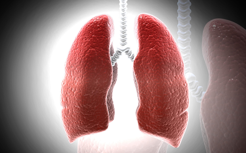 Sarkoidos är en infektion som oftast drabbar lungorna.