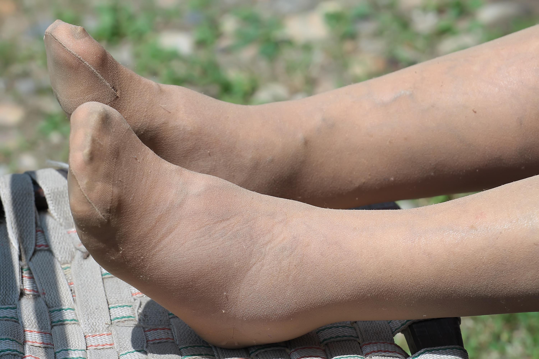 vandrande smärta i benet