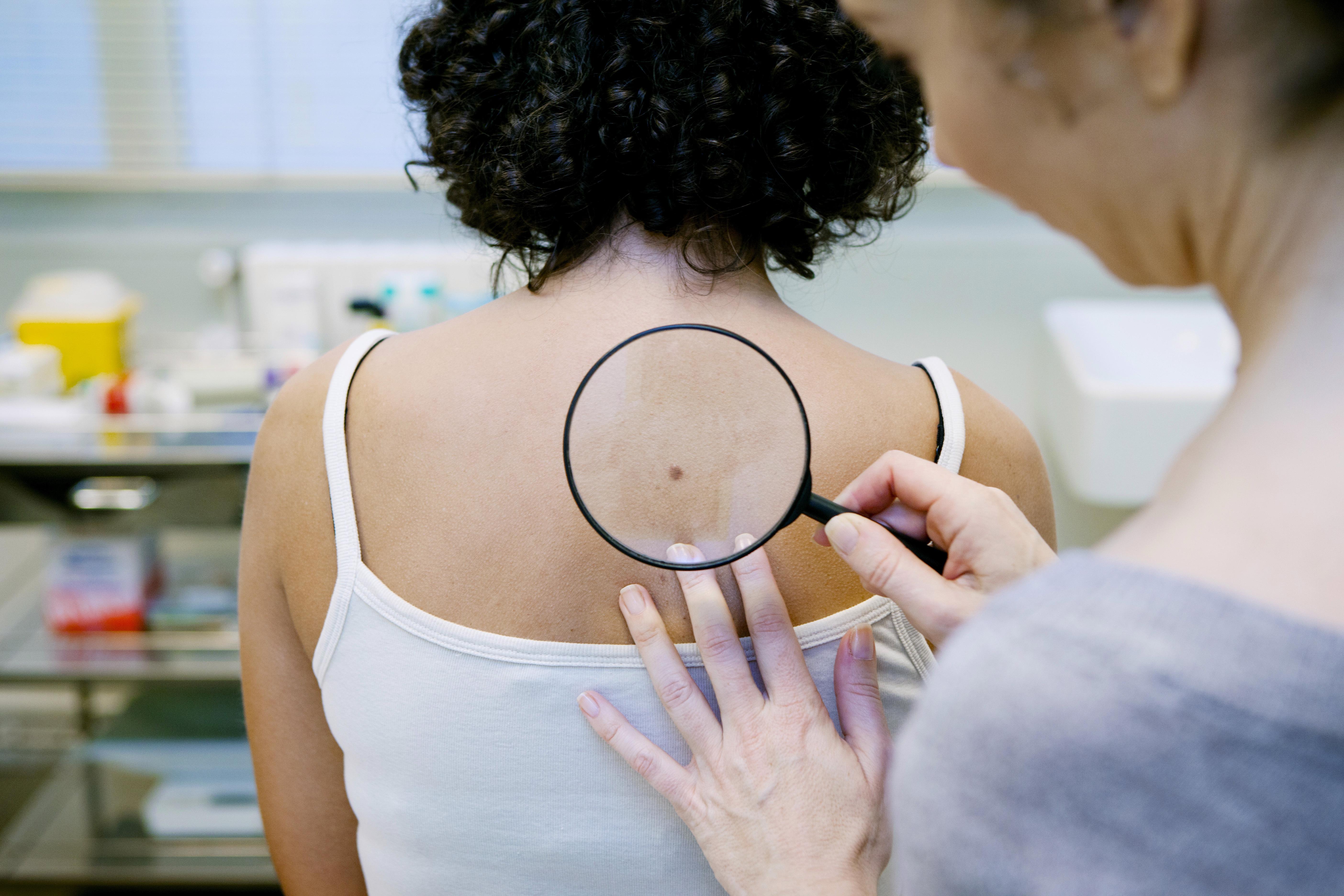 Bröstcancer och prostatacancer är fortfarande de vanligaste formerna av cancer men det är särskilt en cancerform som ökar snabbast.