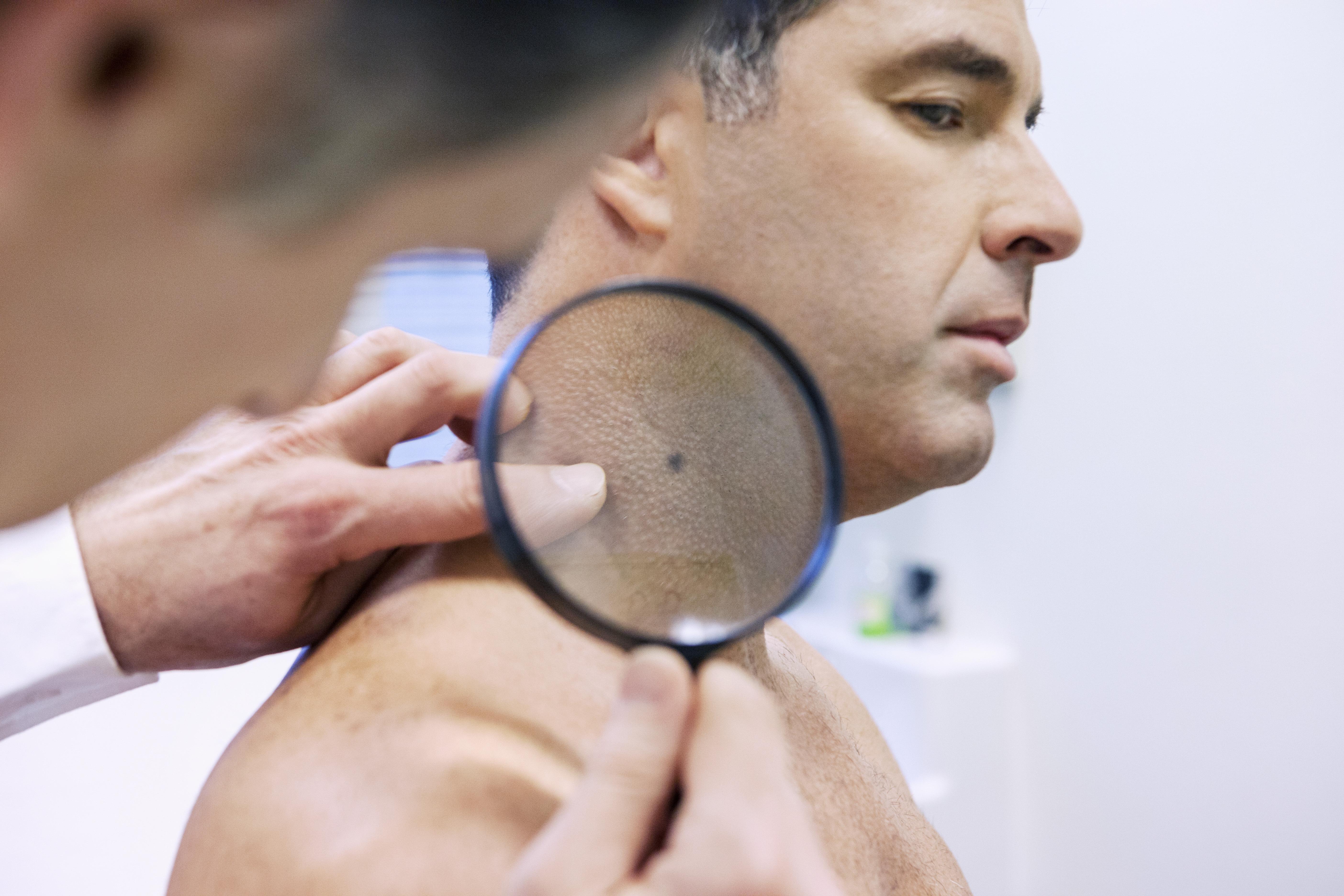 En studie visade att datorprogram och hudläkare var lika bra på att tolka om hudförändringar var farliga eller ofarliga.
