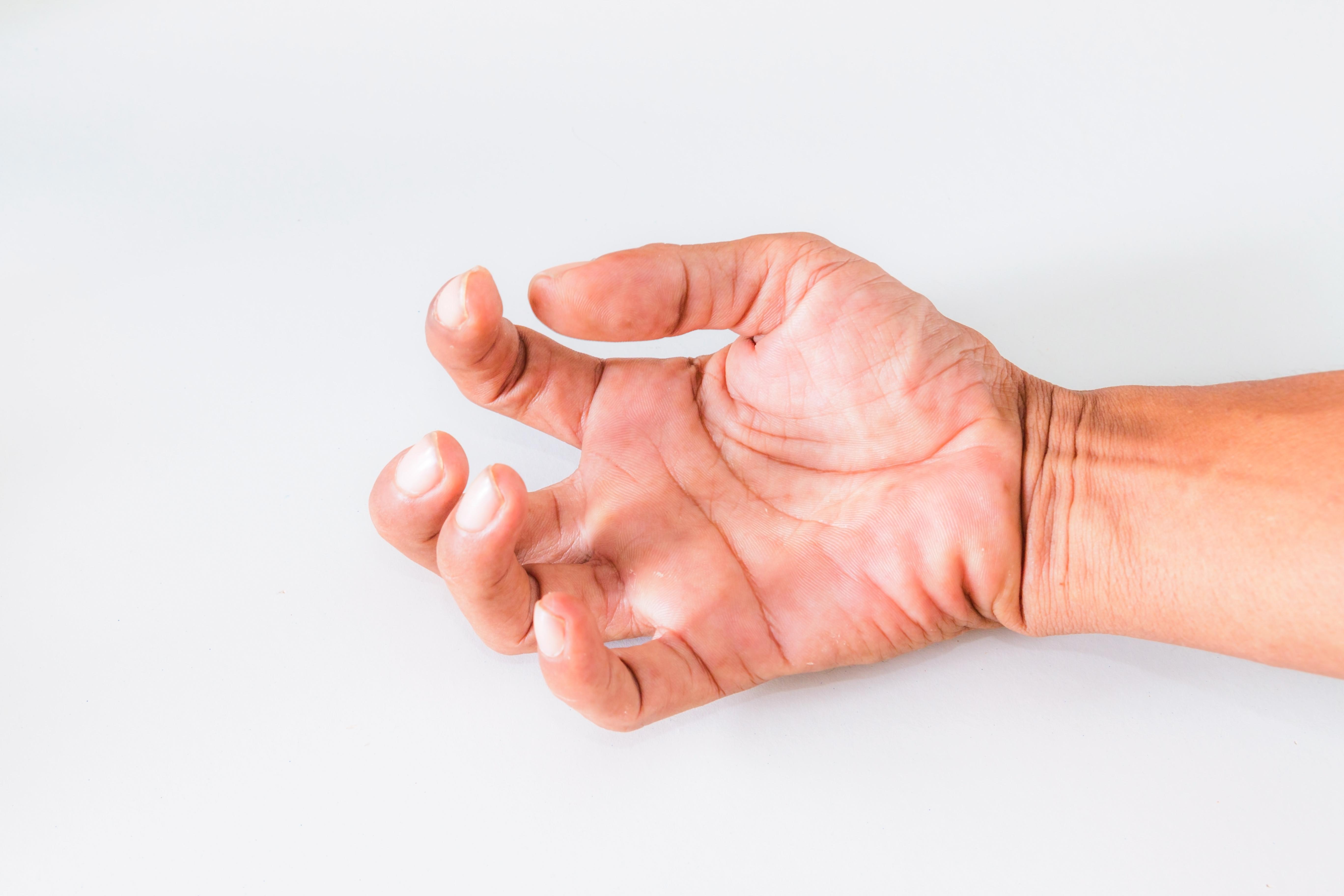 Vid spasticitet blir rörelsen i drabbade kroppsdelar svårare och mindre kontrollerbara.