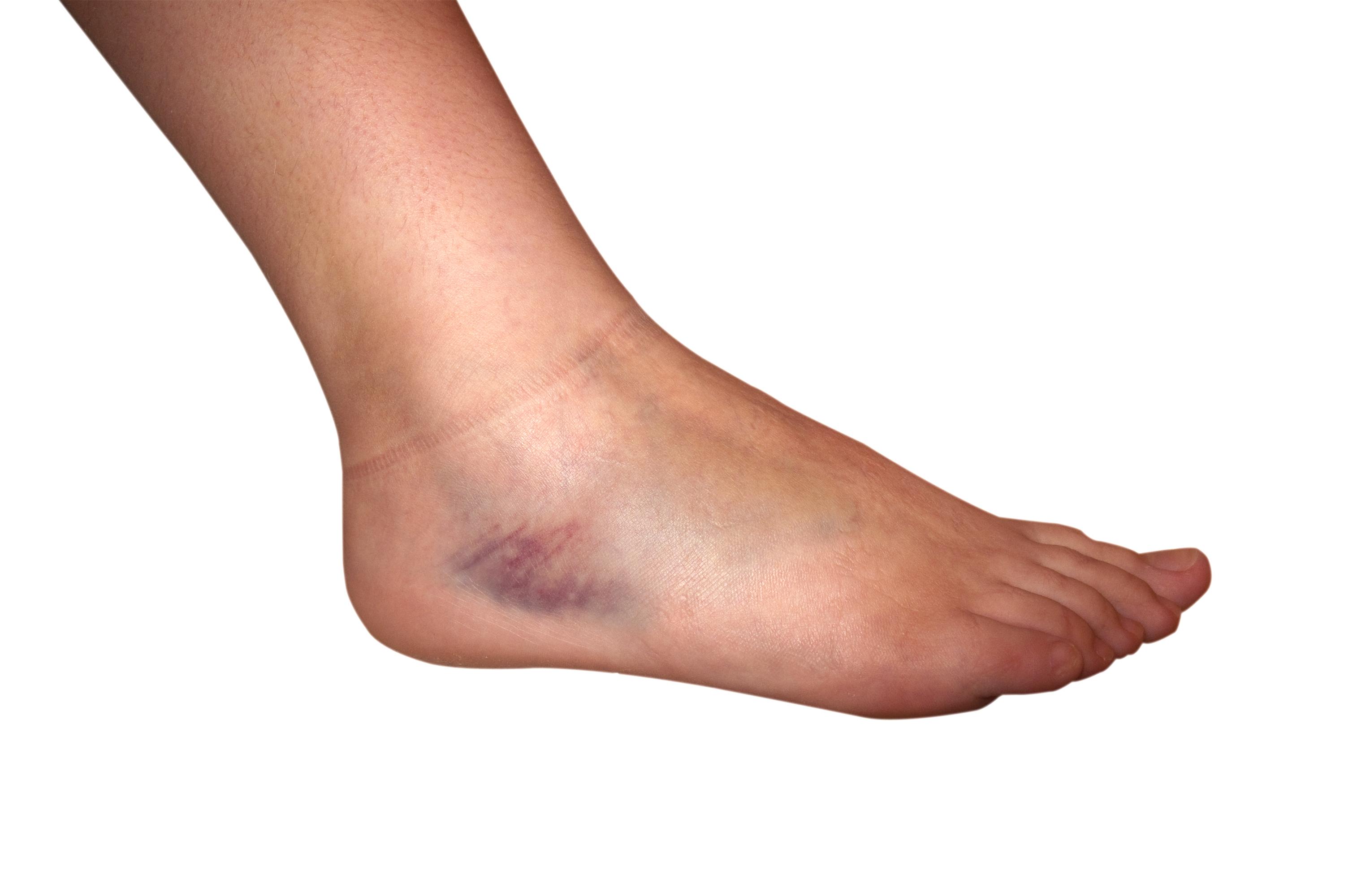 En stukad fot innebär att vävnaderna i fotleden skadats.