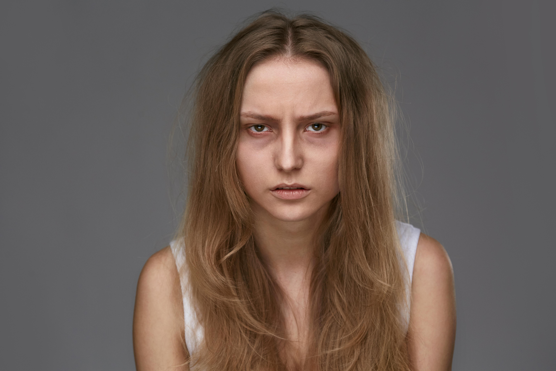 Vanliga symtom på blödarsjukan är blåmärken.