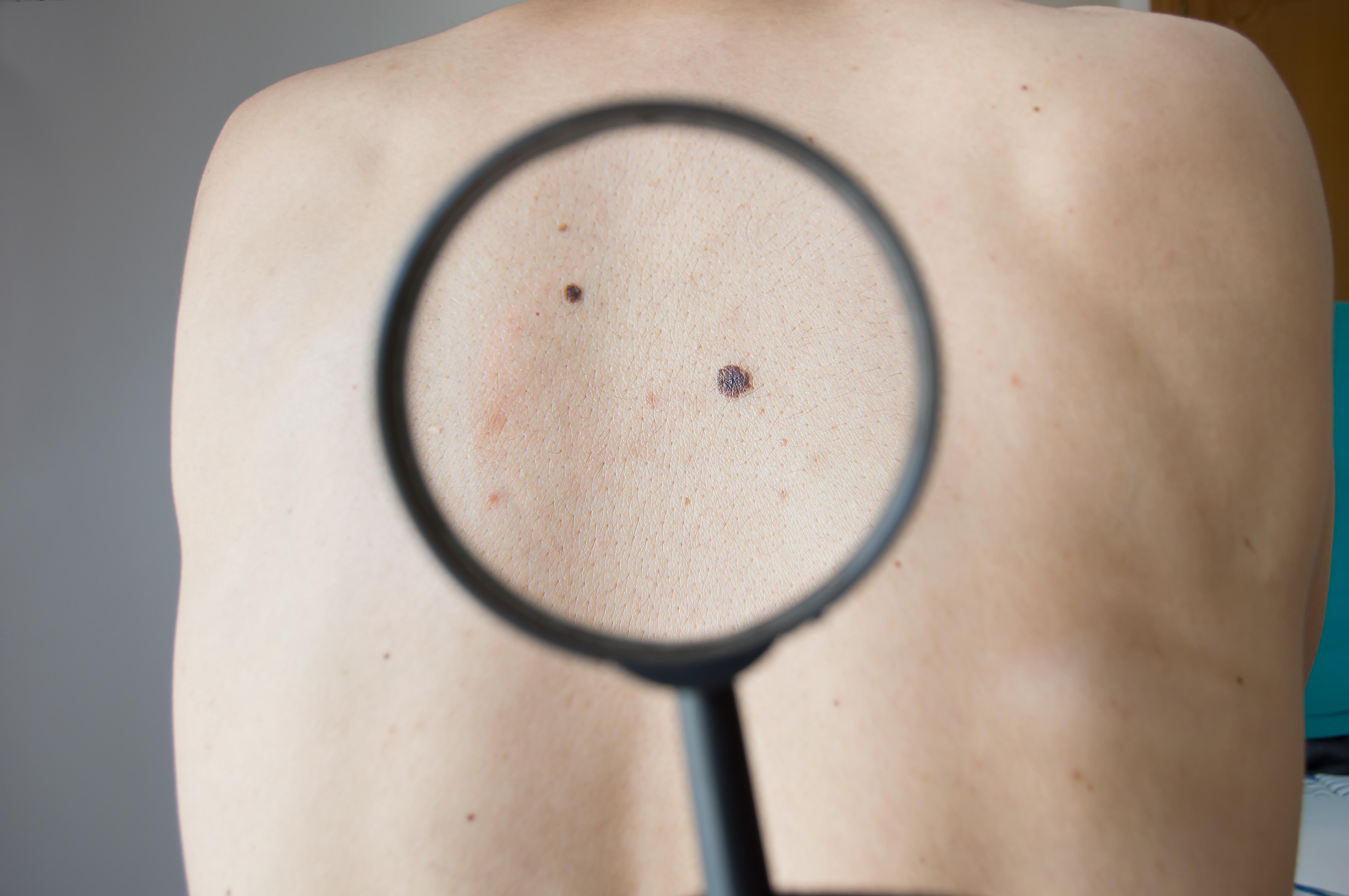 Hudtumörer är idag den näst vanligaste maligna cancerformen i Sverige för bägge könen och det fortsätter att öka.