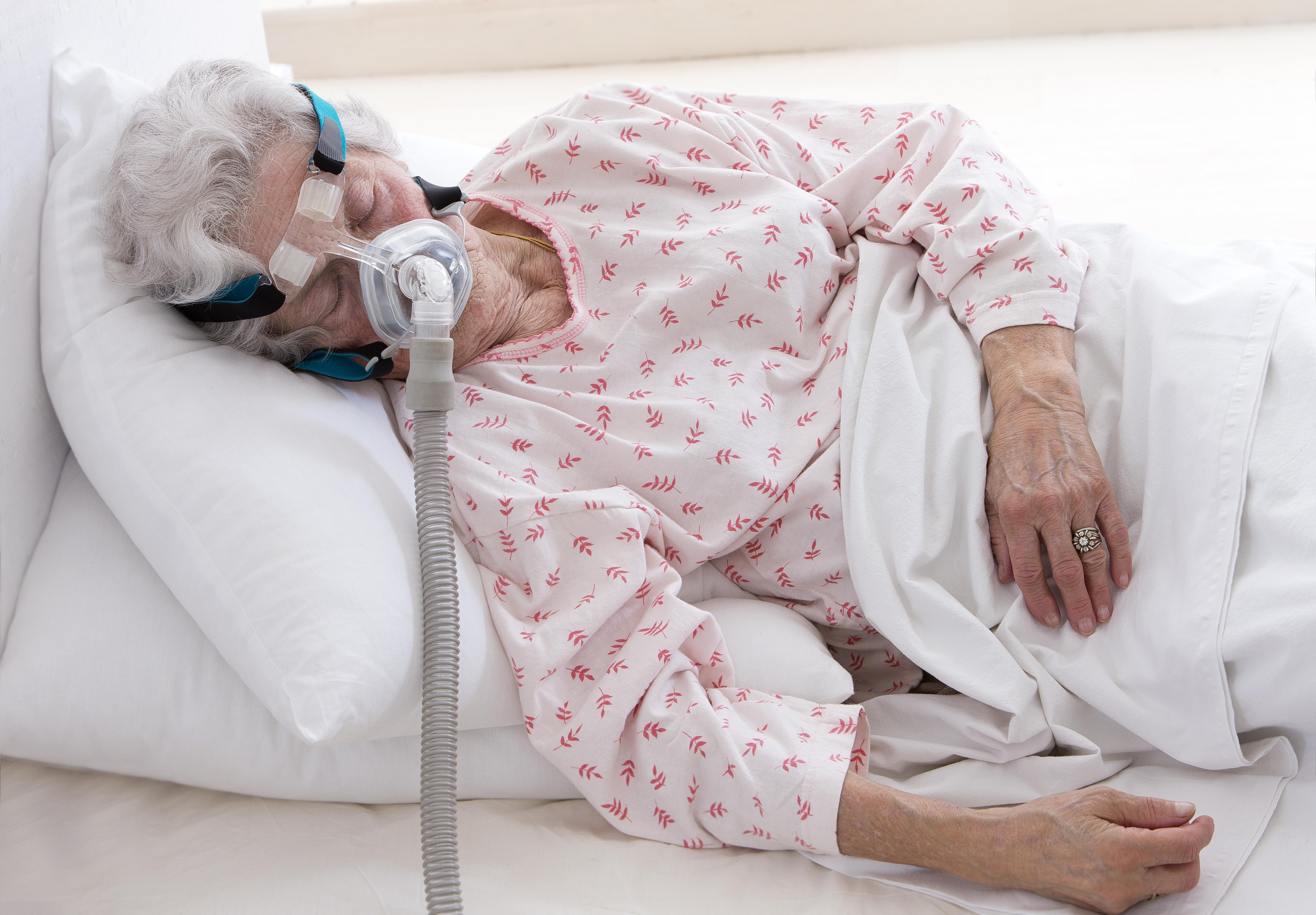 Tidigare betraktades obstruktiv sömnapné som ett tillstånd som framförallt drabbar män, men senare studier har visat att det i hög grad även drabbar kvinnor.