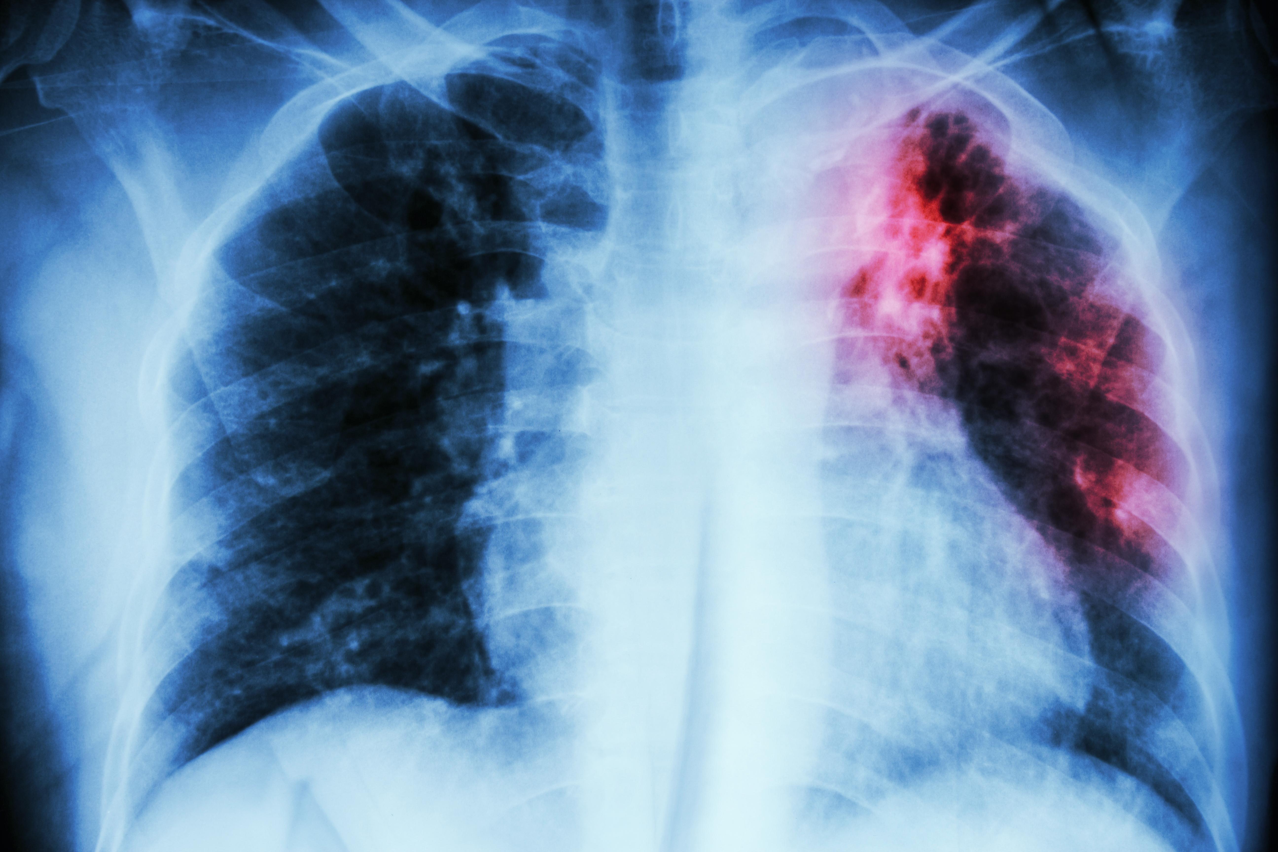 Tuberkulos är en infektionssjukdom som främst påverkar lungorna.