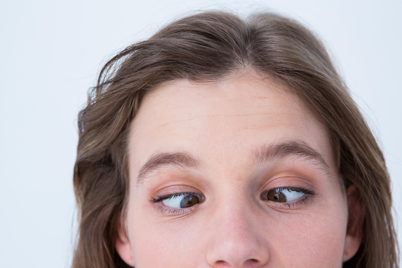 En skelning innebär att ögonen inte tittar åt samma håll.