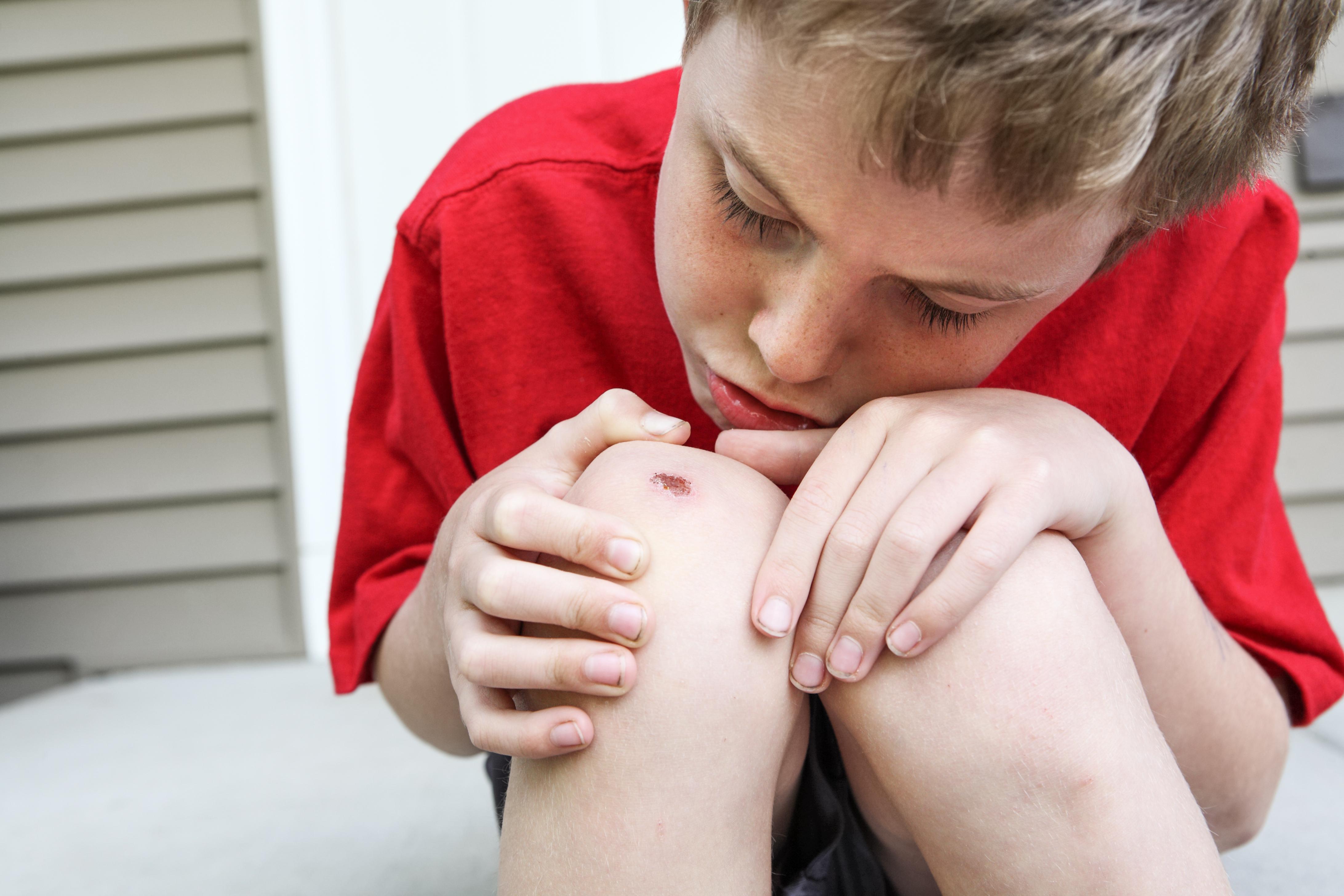 Upptäckten om salivens effekt vid sårläkning var en slump som inträffade vid en närmare granskning av hur saliven kunde förstärka immunförsvaret hos hudcellerna.