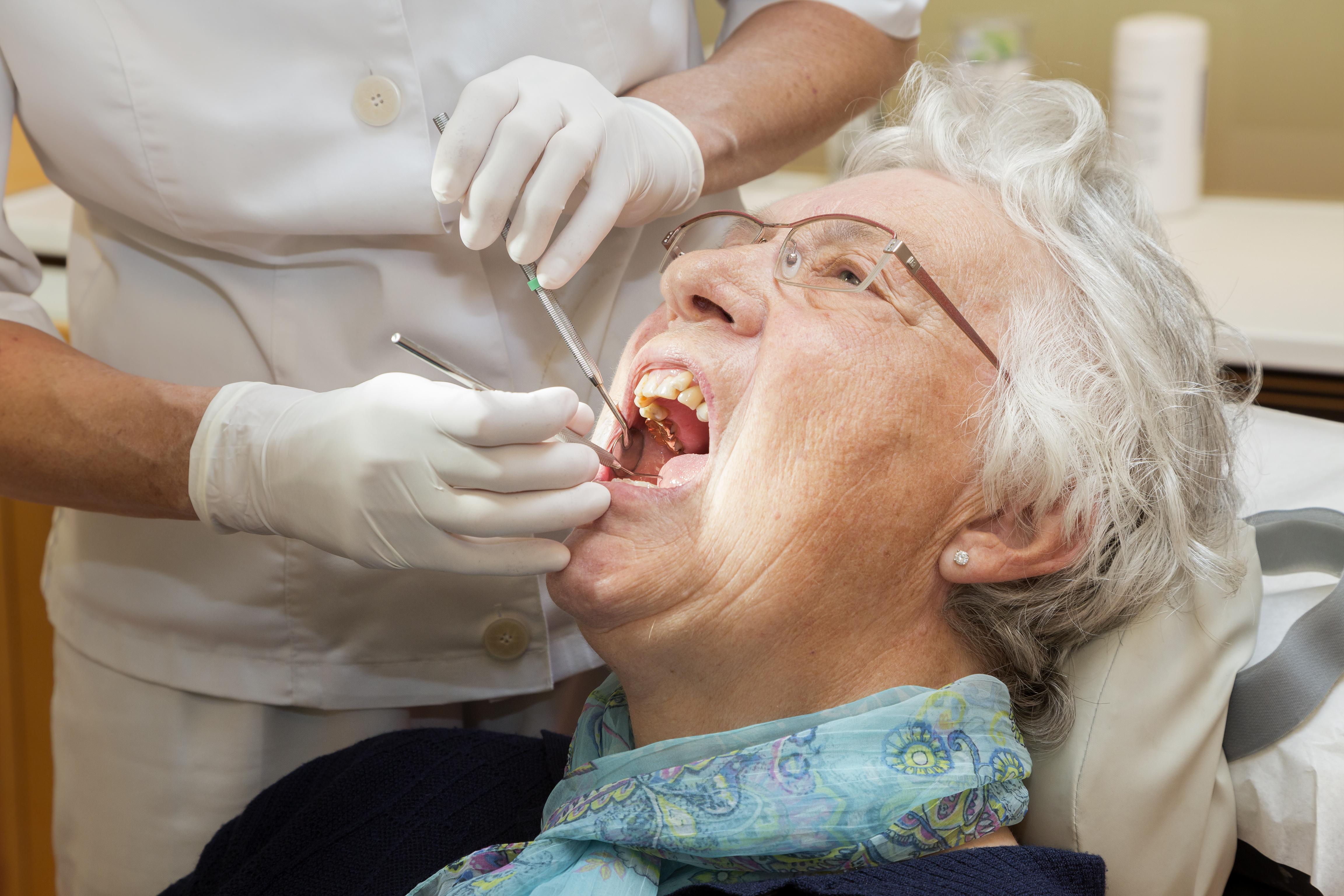 Drygt hälften, 52 procent, av pensionärerna som avstår tandvård har gjort det av ekonomiska skäl.