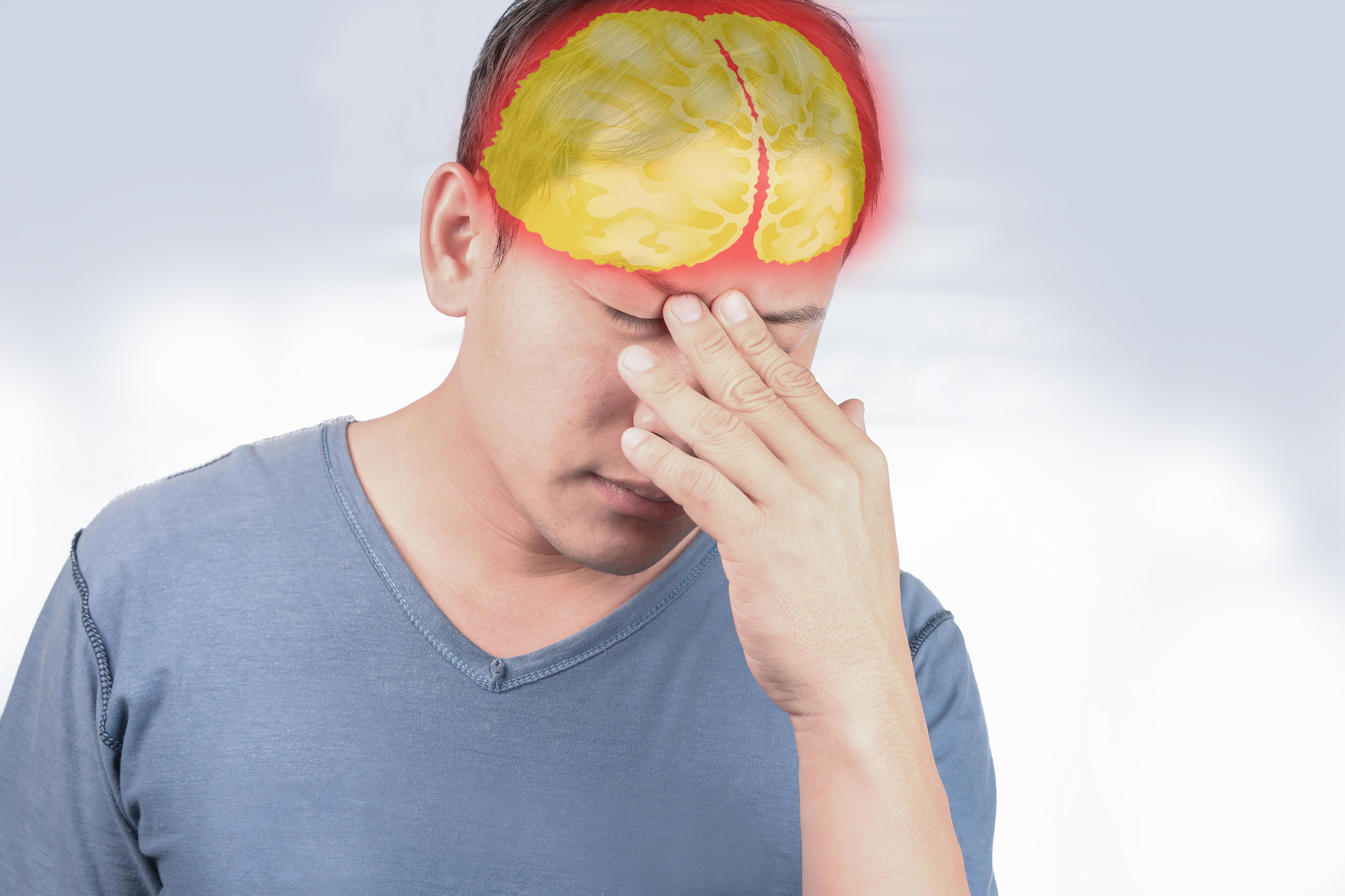 En hjärnskakning beror på ett slag mot huvudet och kan ge upphov till illamående.