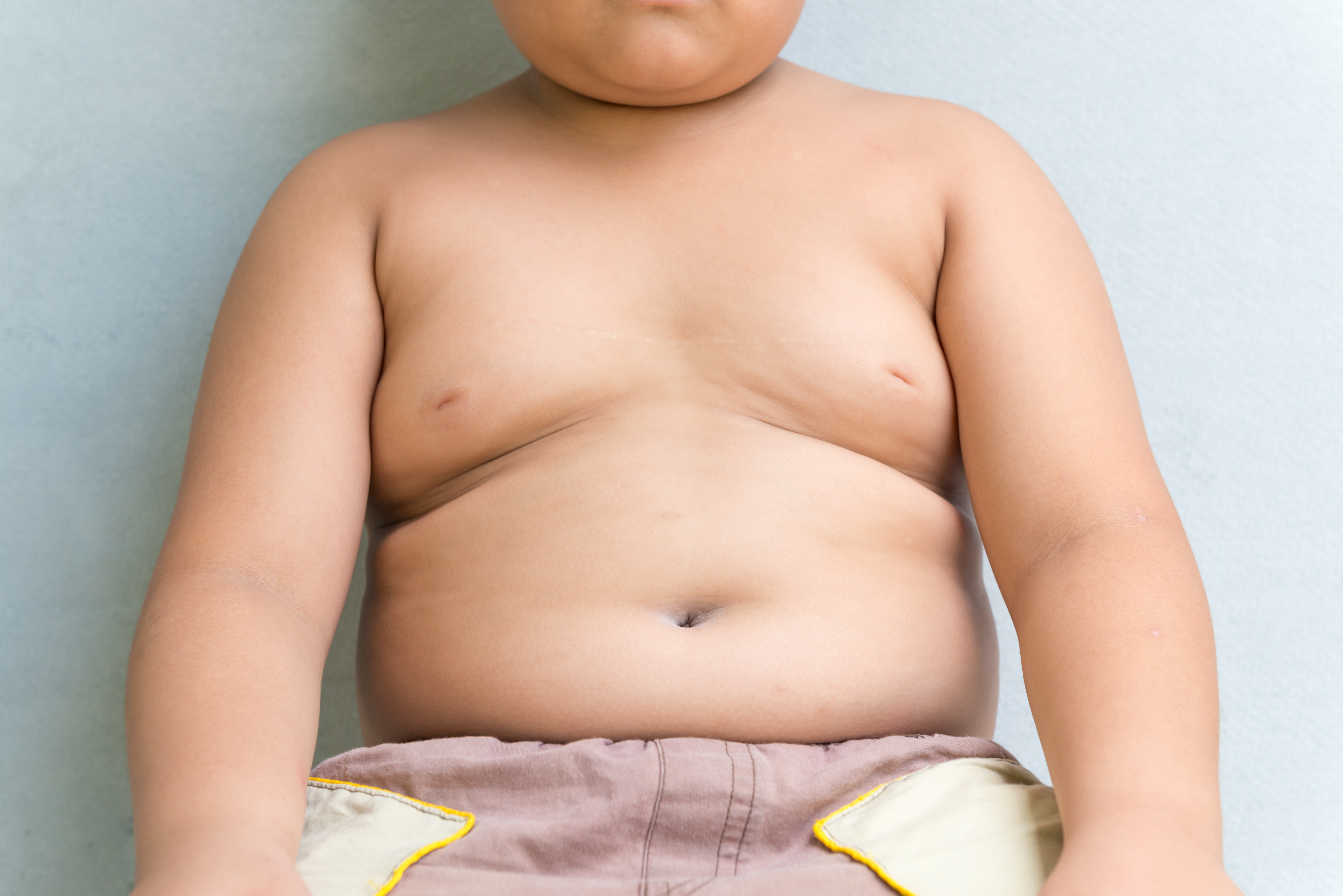 Övervikt och fetma bland 4-åringar är dubbelt så vanligt i socioekonomiskt utsatta områden.