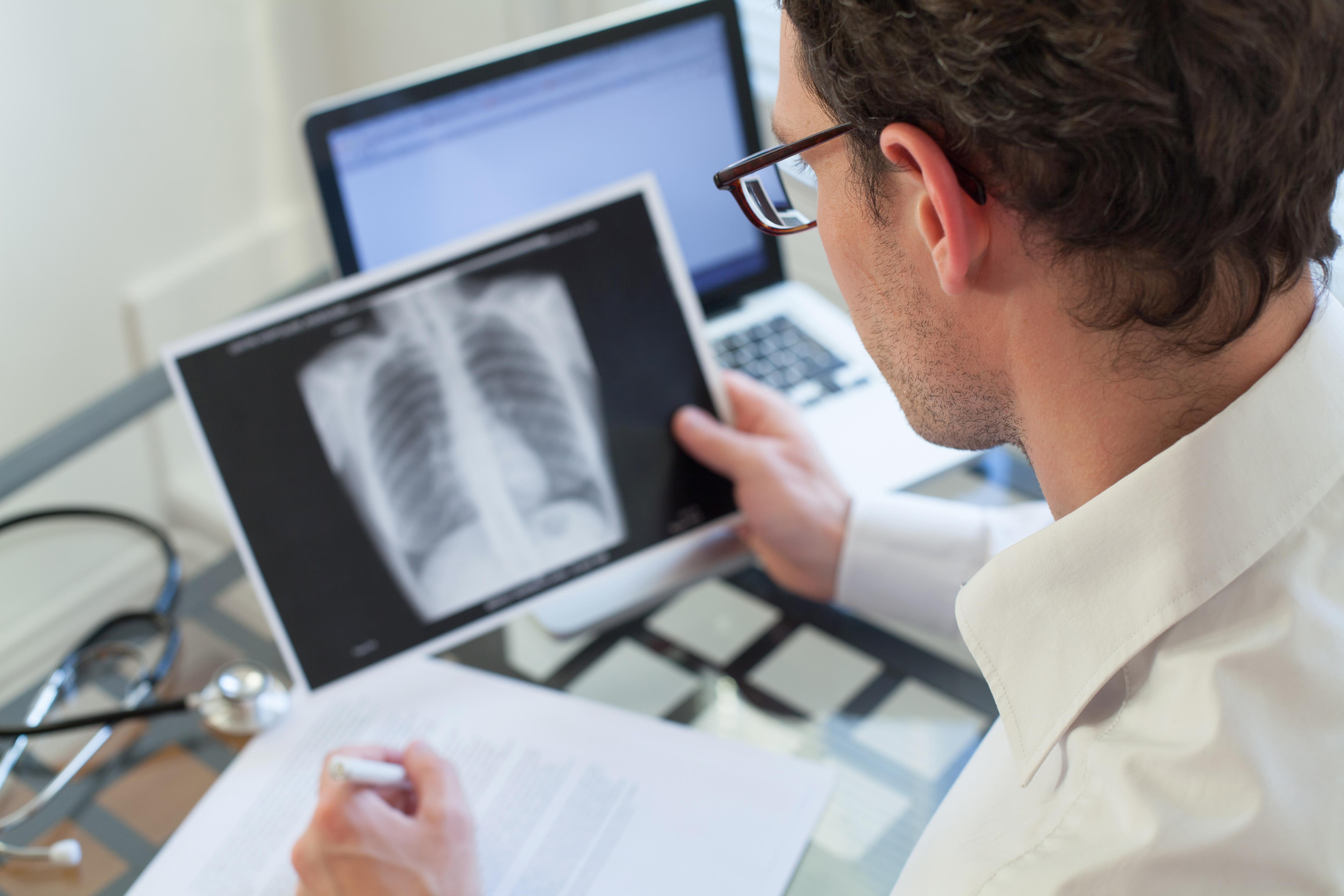 Antalet upptäckta fall av tuberkulos i Sverige har enligt Folkhälsomyndigheten fördubblats på de senaste tio åren.