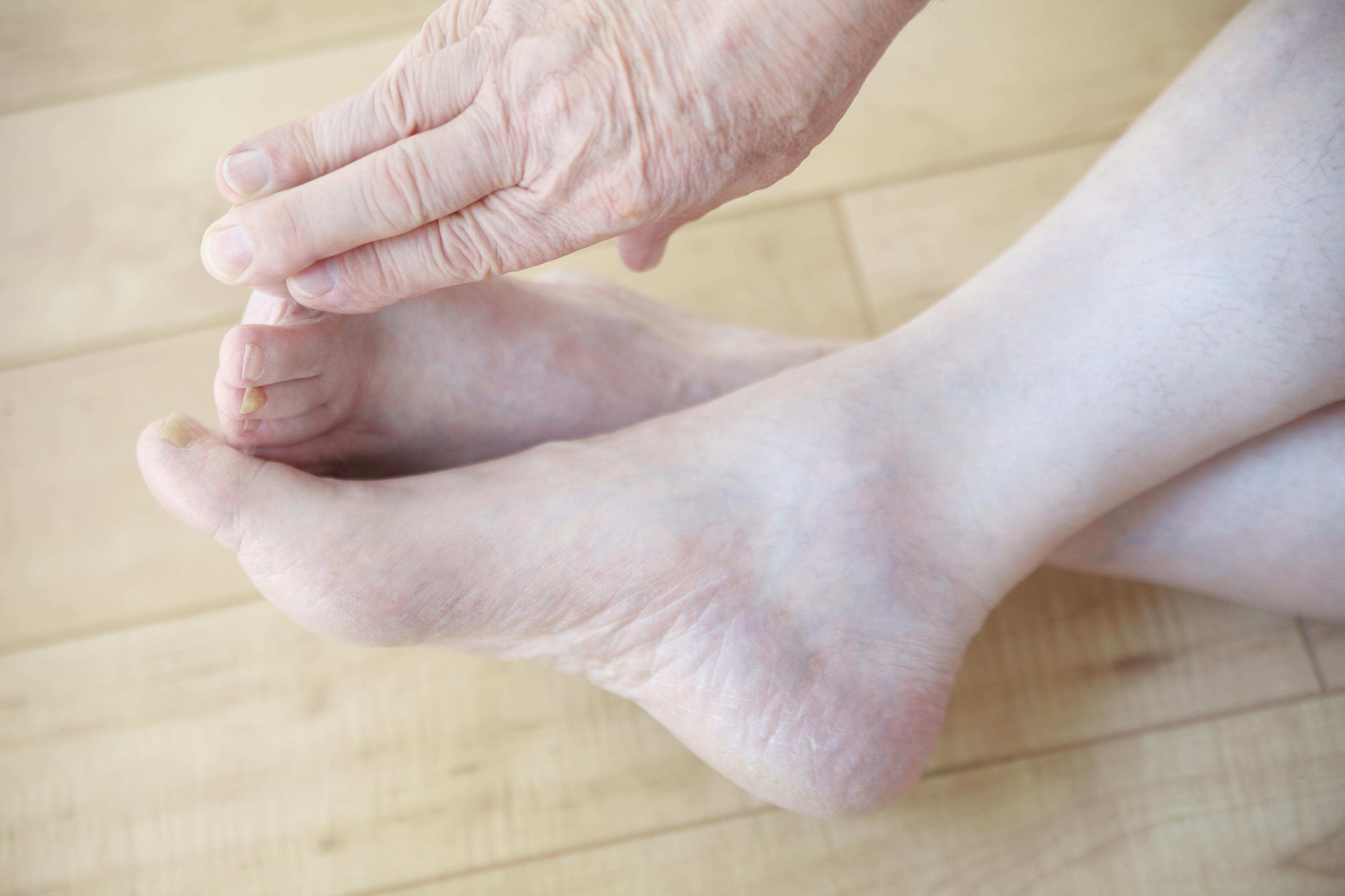fc27f75c971 Lär känna dina fötter genom att dagligen ta en koll på hur de mår - då