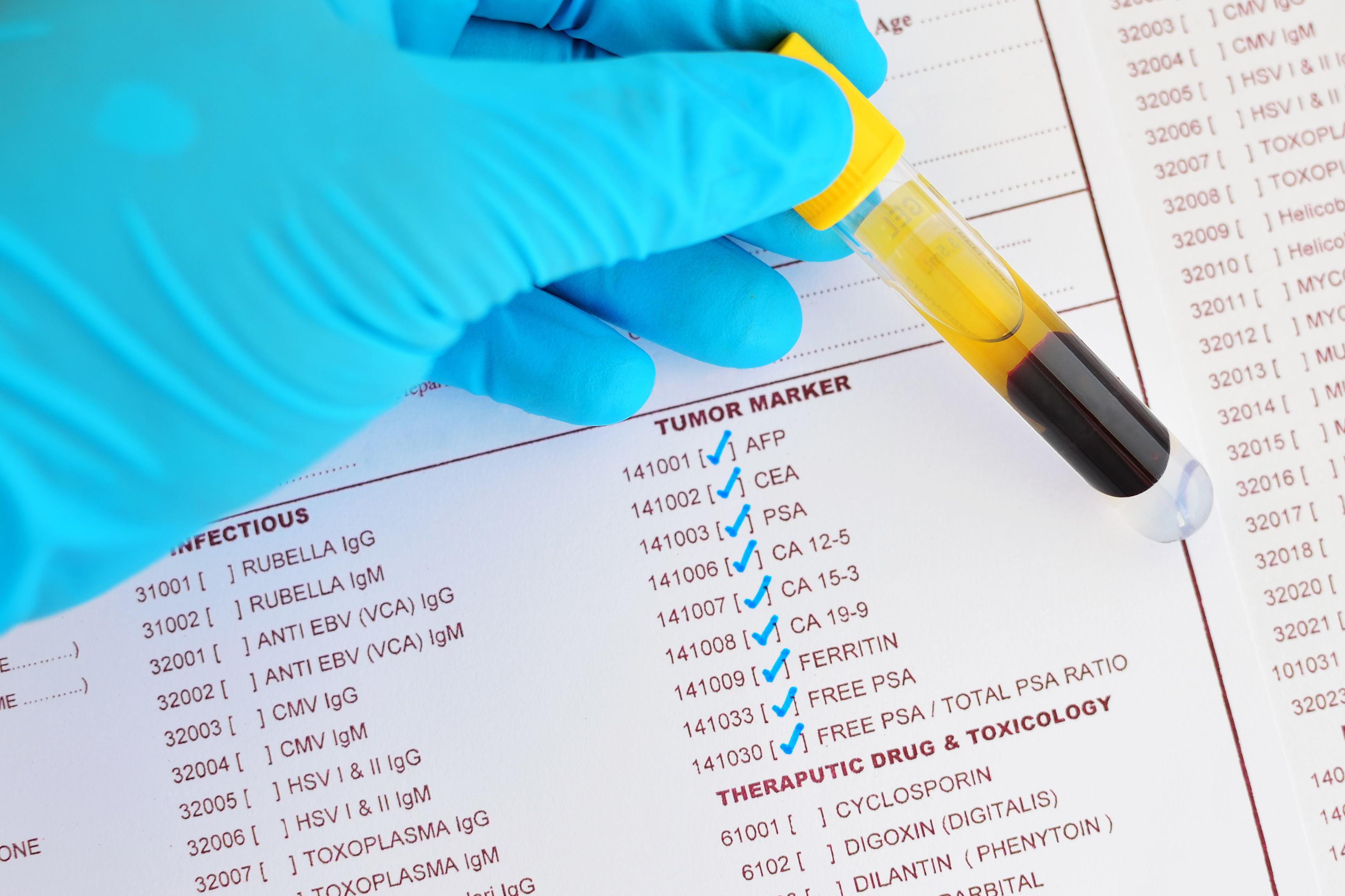 Numera kan man med hjälp av ett blodprov, så kallad BRCA-screening eller BRCA-test, ta reda på om man har en ärftlig BRCA-mutation.