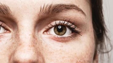 gul fläck i ögonvitan