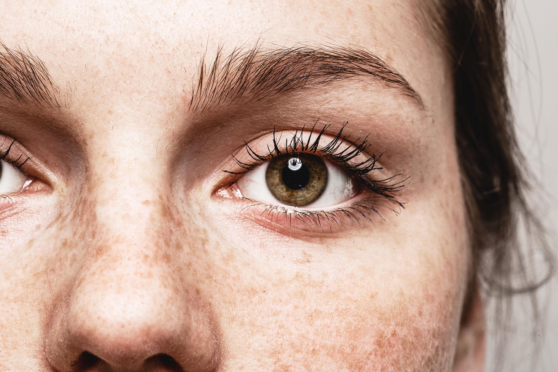 Grumlingar i ögat, glaskroppsgrumlingar eller floaters kan drabba människor i alla åldrar även om det är vanligare vid 40 år och uppåt.