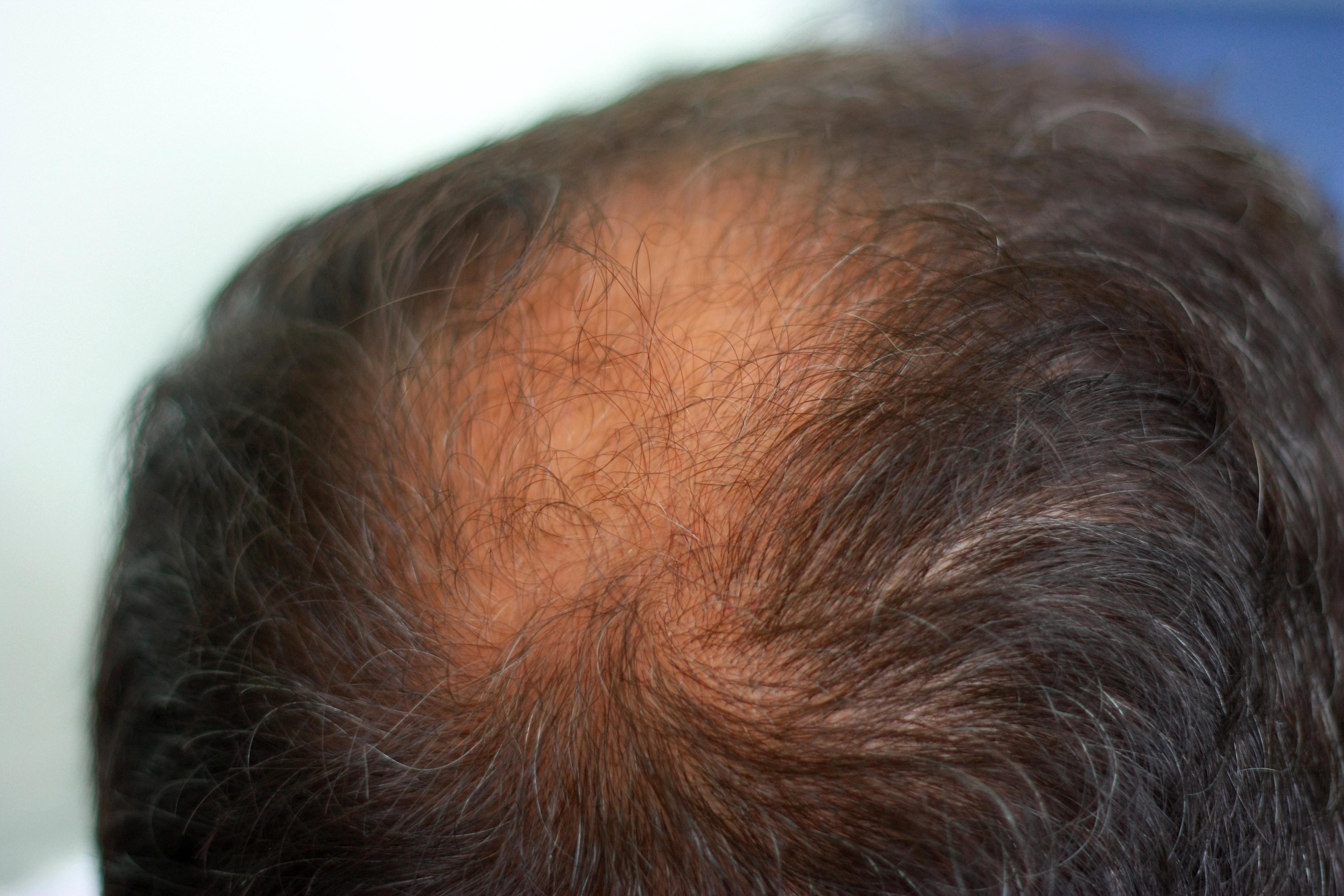 Börjar den där kala fläcken på hjässan kännas större och större? Då har du förmodligen drabbats av håravfall, något som förr eller senare drabbar en stor andel män.