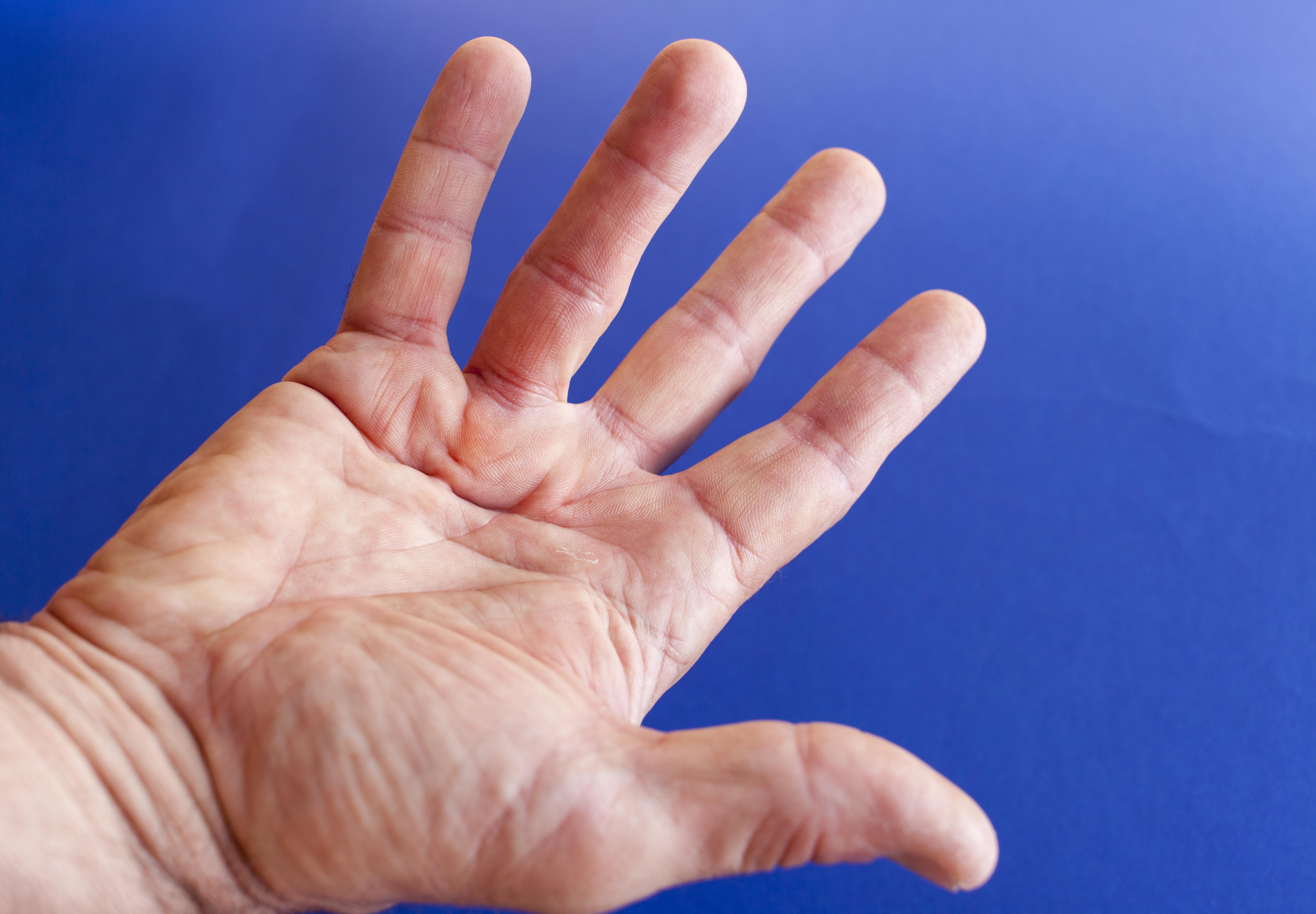 Numera finns det enklare metoder som gör att fingrarna kan bli som vanligt och fungera lika bra som innan innan läkarbesöket.