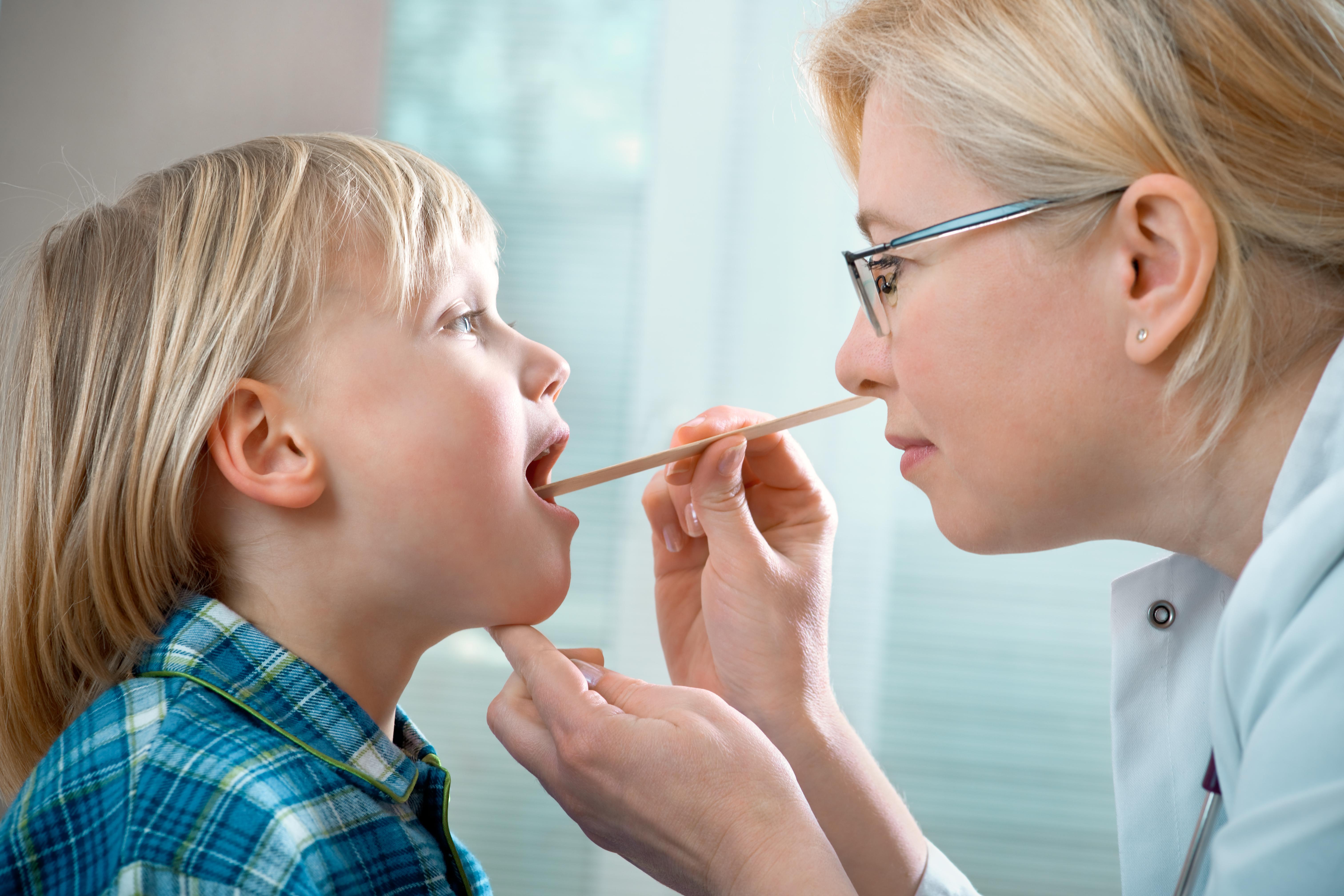 I samband med konstaterad bakteriell halsfluss är det viktigt att ta hela antibioitkakuren.