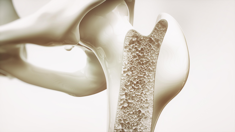 Osteoporos uppstår när bennedbrytande cellerna blir starkare och kroppen förlorar mer benmassa än den kan bygga upp.