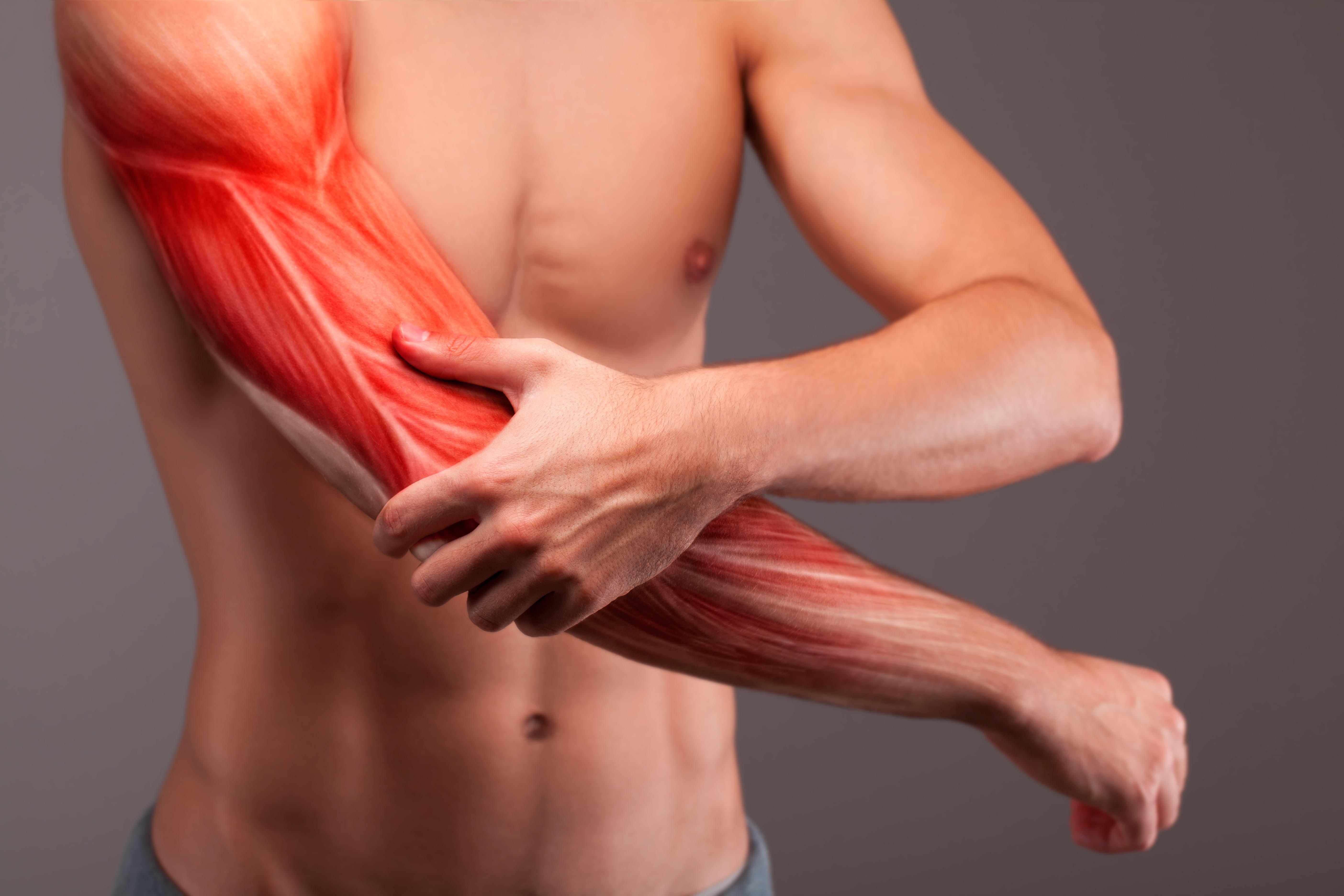 En muskelbristning orsakas av att muskelfibrer går av vilket skapar en blödning i muskelvävnaden.