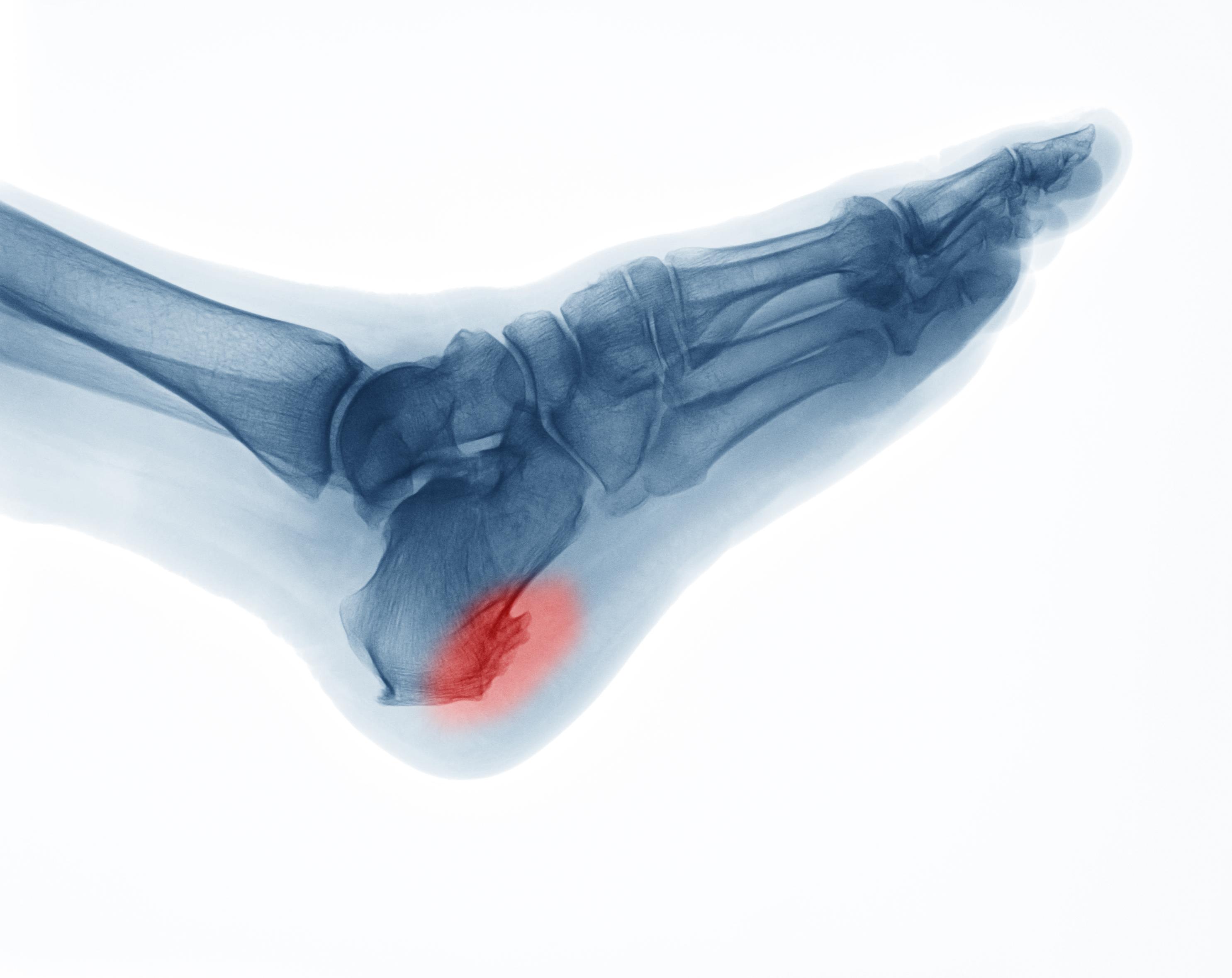 Vid hälsporre kan det bildas en påbyggnad av benet på undersidan av hälen som ser ut som en sporre på röntgen, därför kallas det för hälsporre.