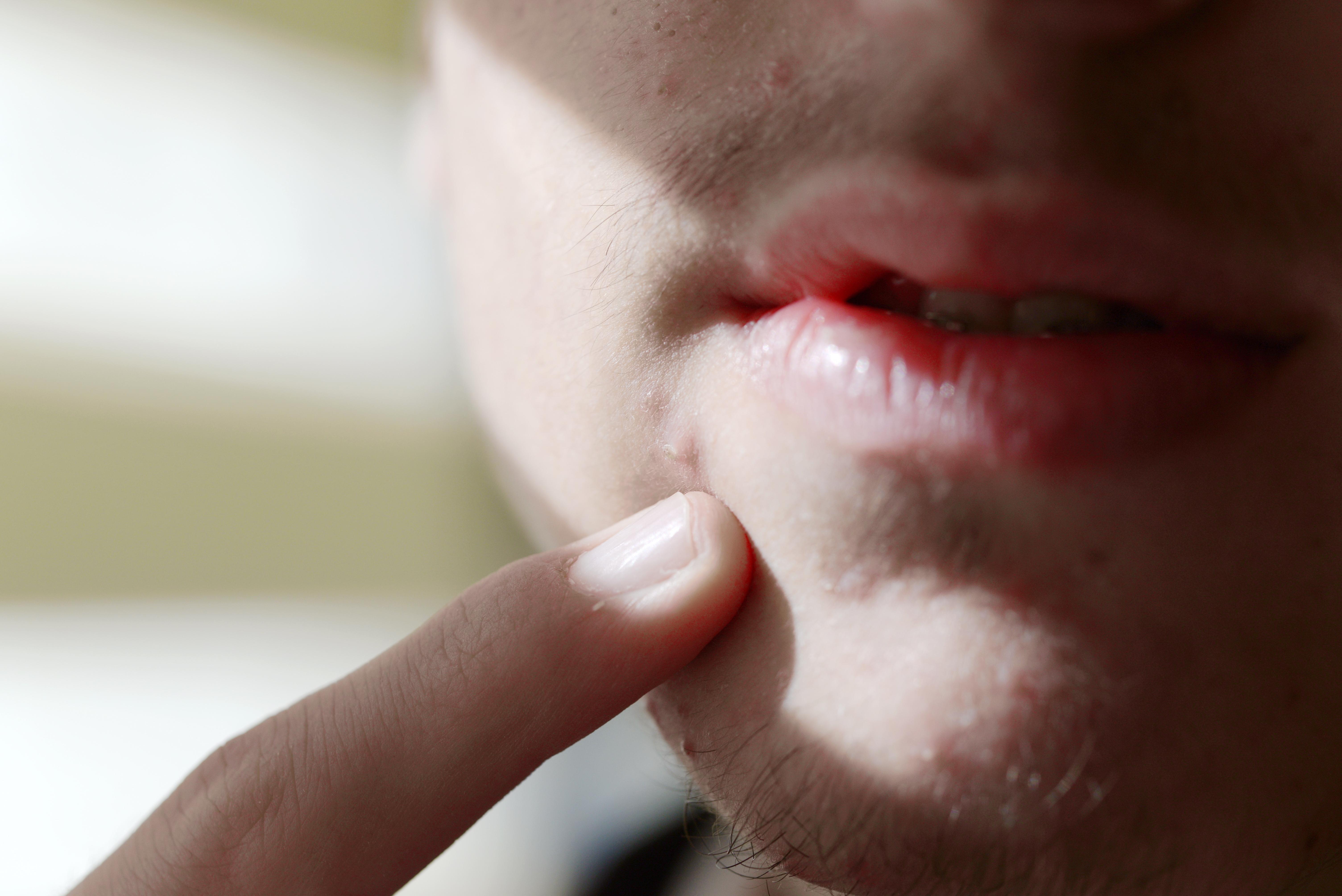 Oftast sitter akneutslagen i ansiktet, men ibland också på bröst eller rygg. De läker för det mesta utan att lämna ärr.