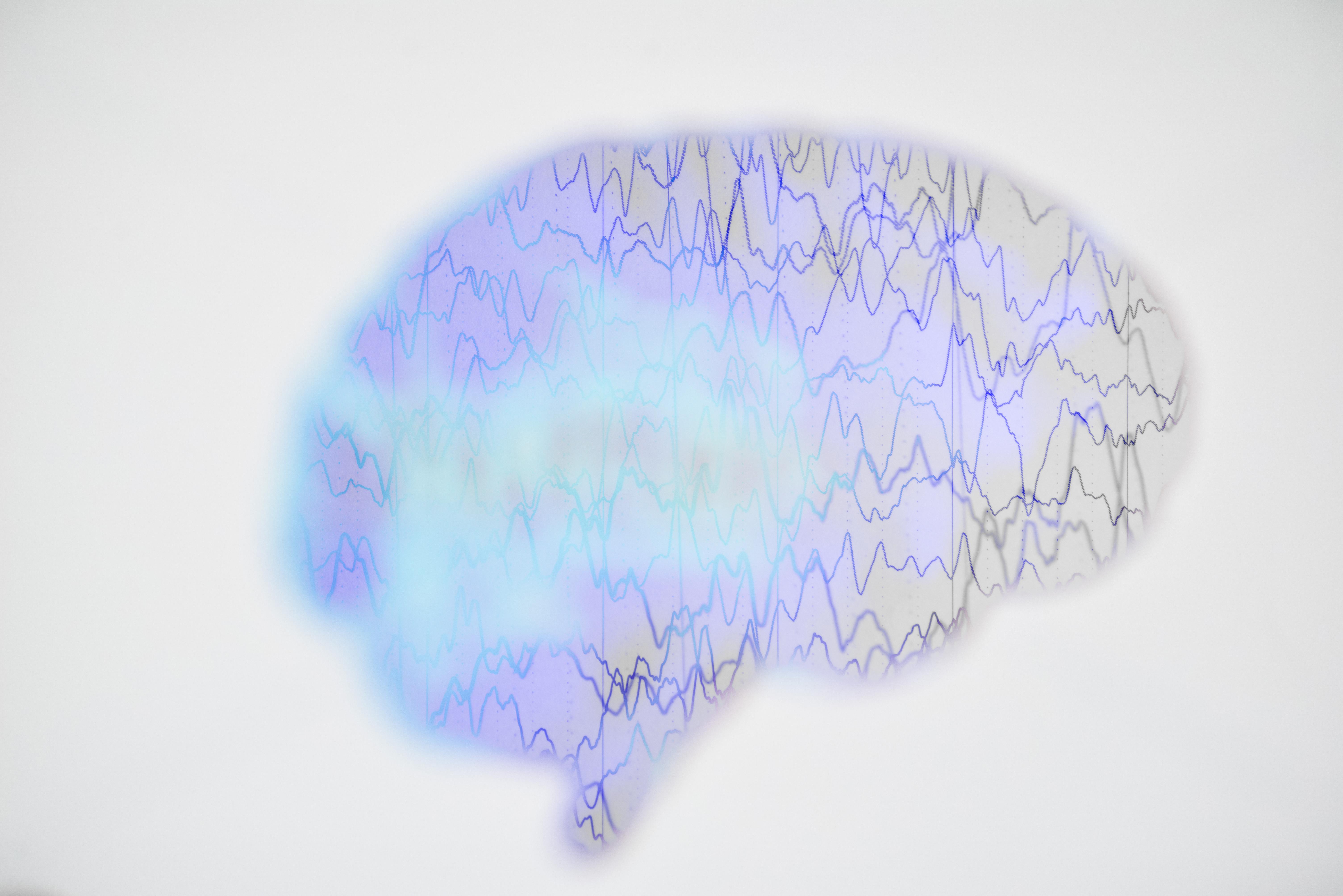 Dejtingsajt för epileptika