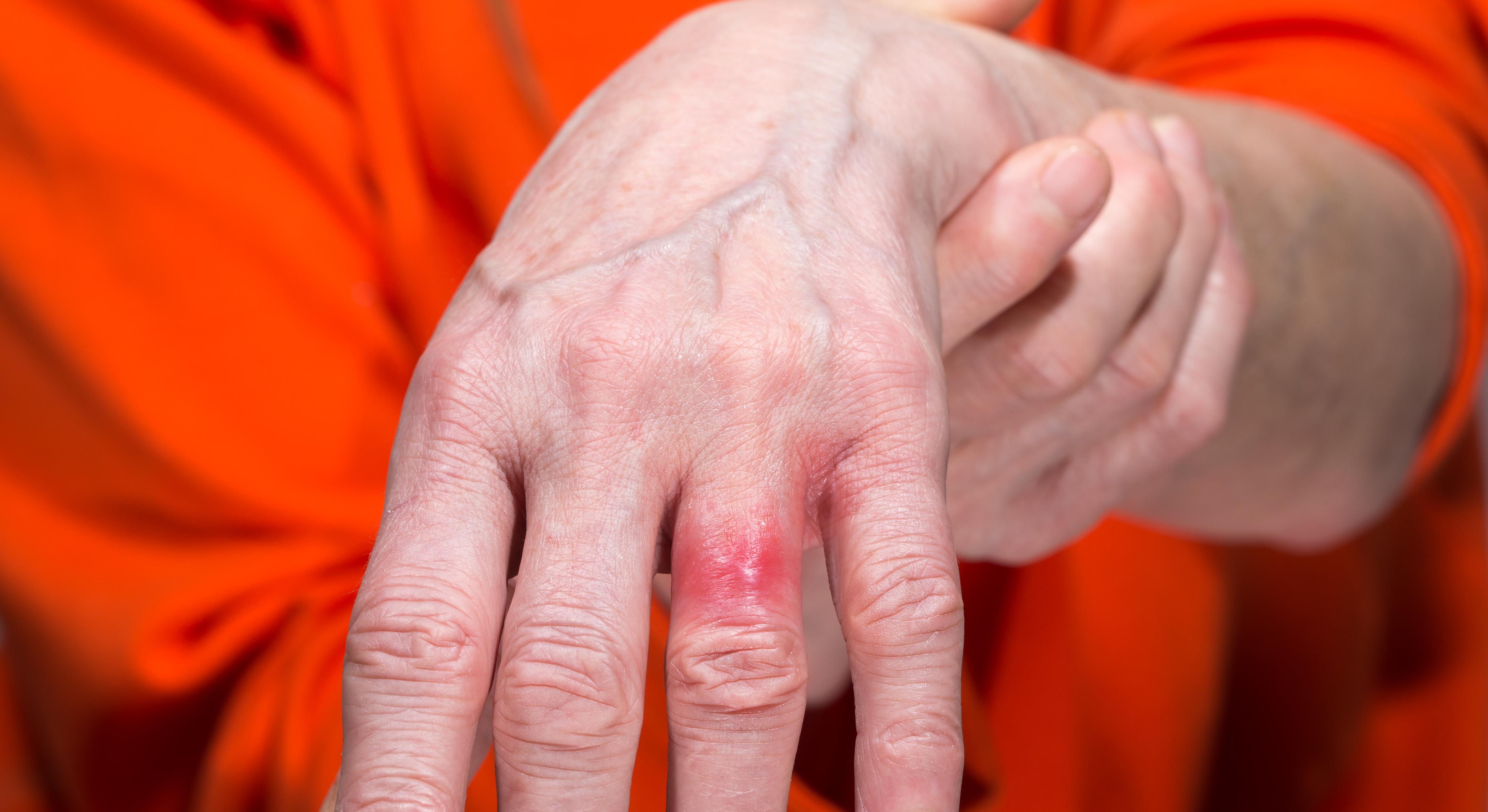 Eftersom nickelallergi ger upphov till  kontakteksem reagerar oftast huden där den har exponerats för nickel.