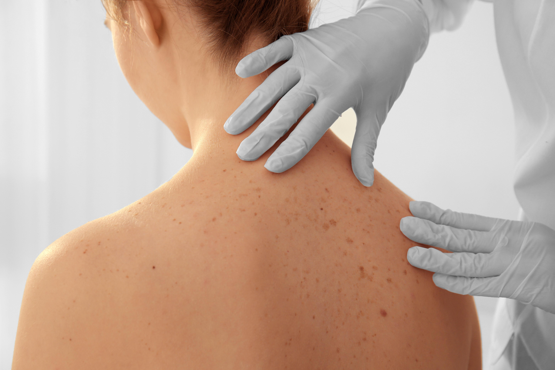 Under Euromelanoma-veckan erbjuds möjligheten att träffa en hudspecialist som kan undersöka eventuella hudförändringar, helt utan remisskrav.