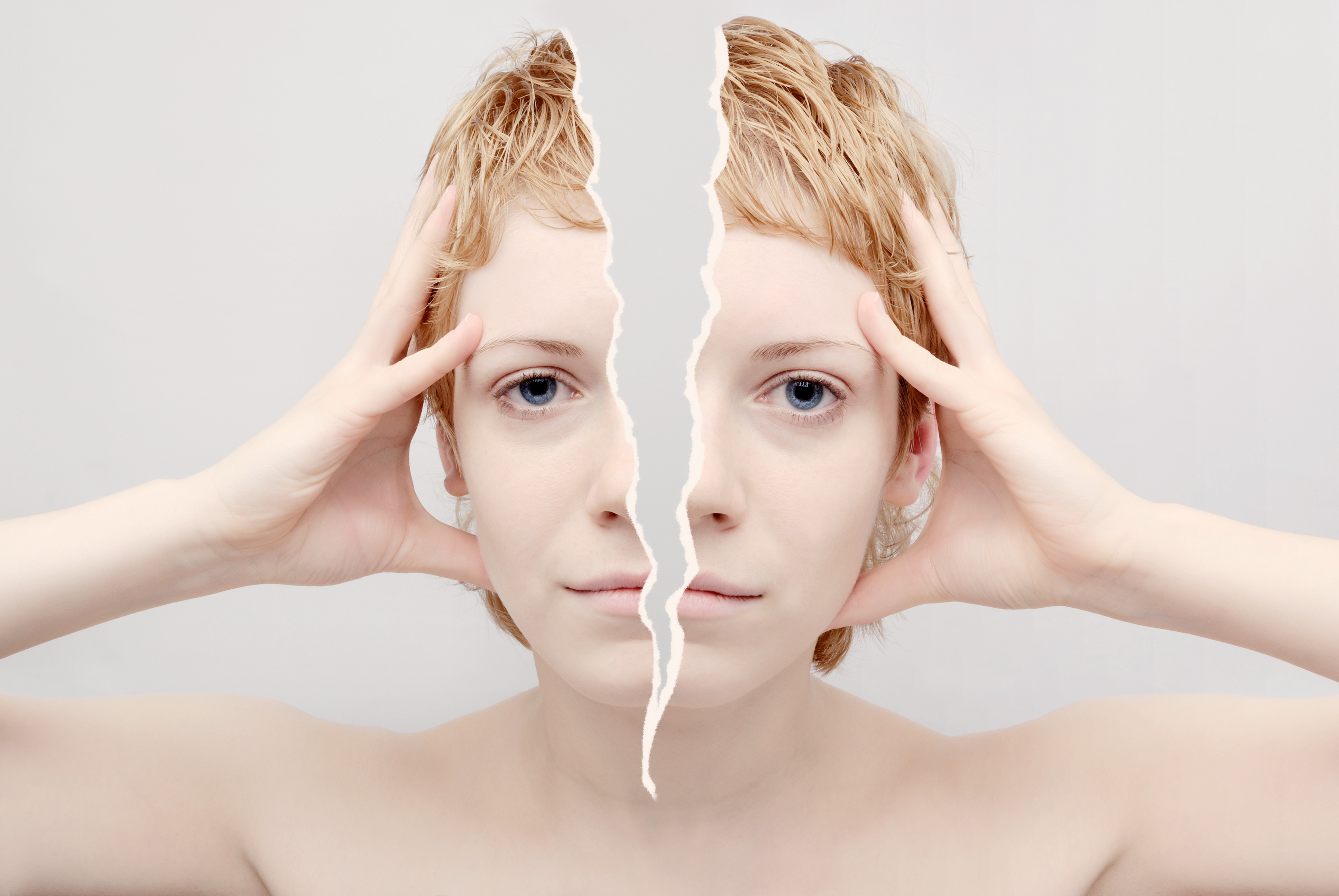 Migrän är i grunden en ärftflig sjukdom som kan försämras av stress