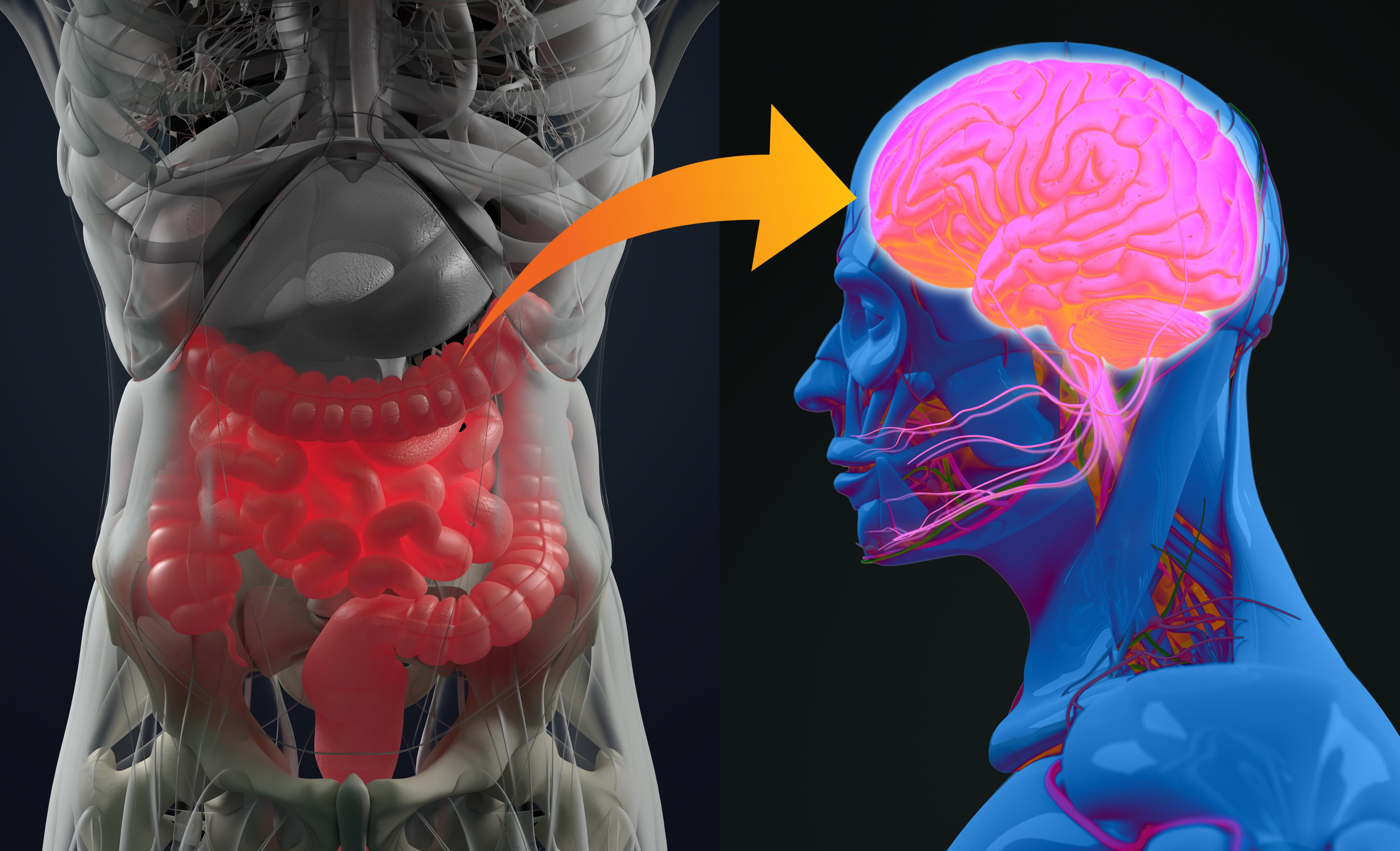 Om tarmfloran inte längre fungerar som den ska kallas det Dysbios. Dysbios har kopplats till sjukdomar som IBS, allergi, fetma, diabetes, depression, autism med mera.