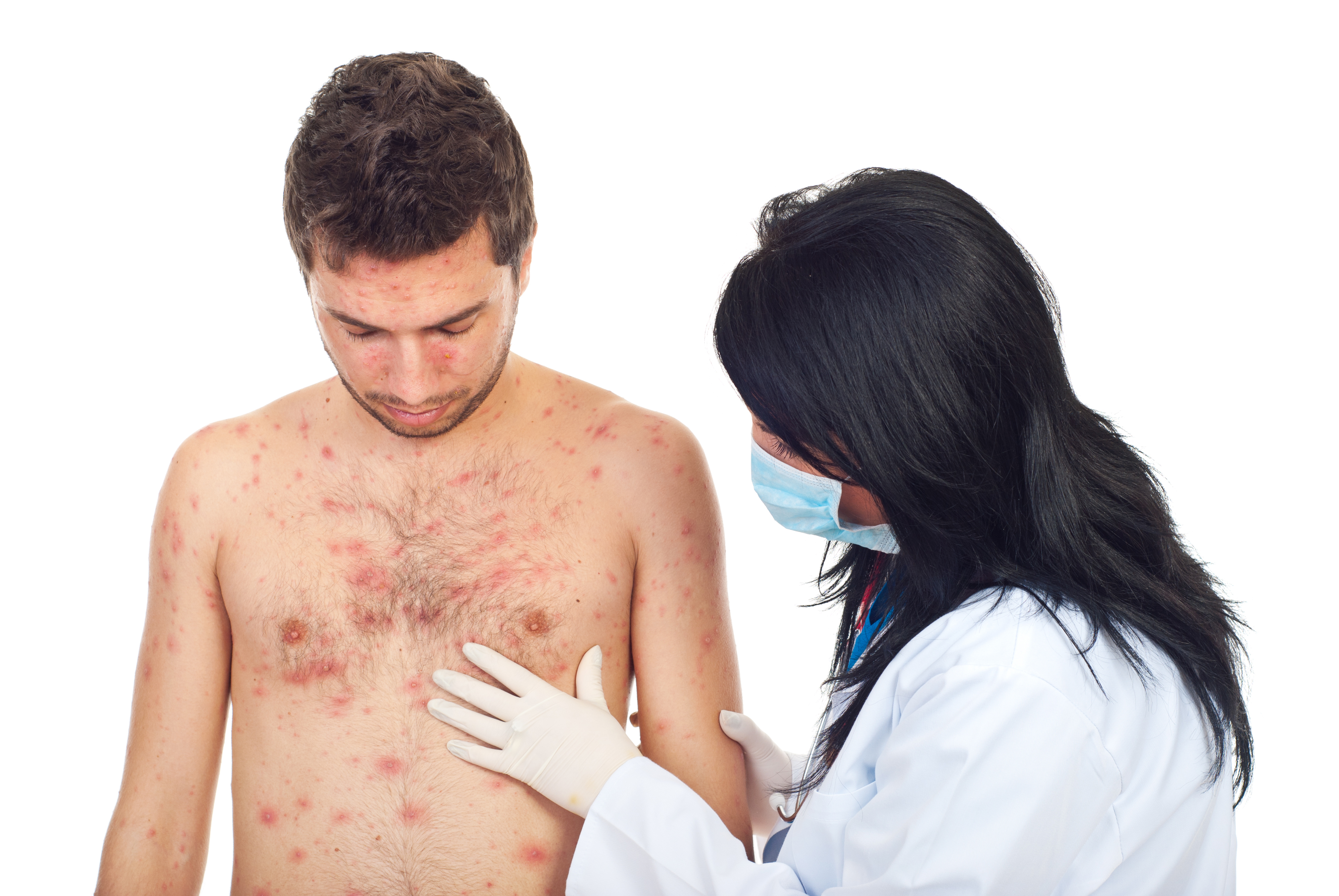 Fjällros är en hudsjukdom som ger irriterade utslag över hela kroppen.