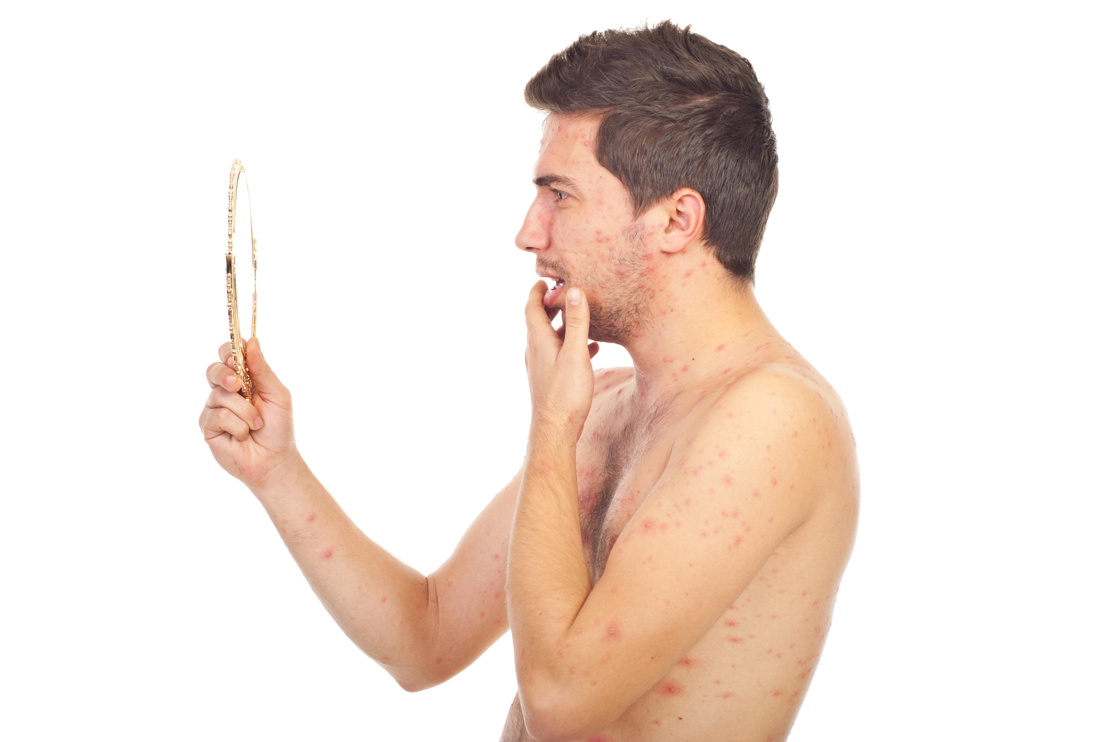 Rosfeber är en akut hudinfektion som visar sig som rodnader på kroppen.