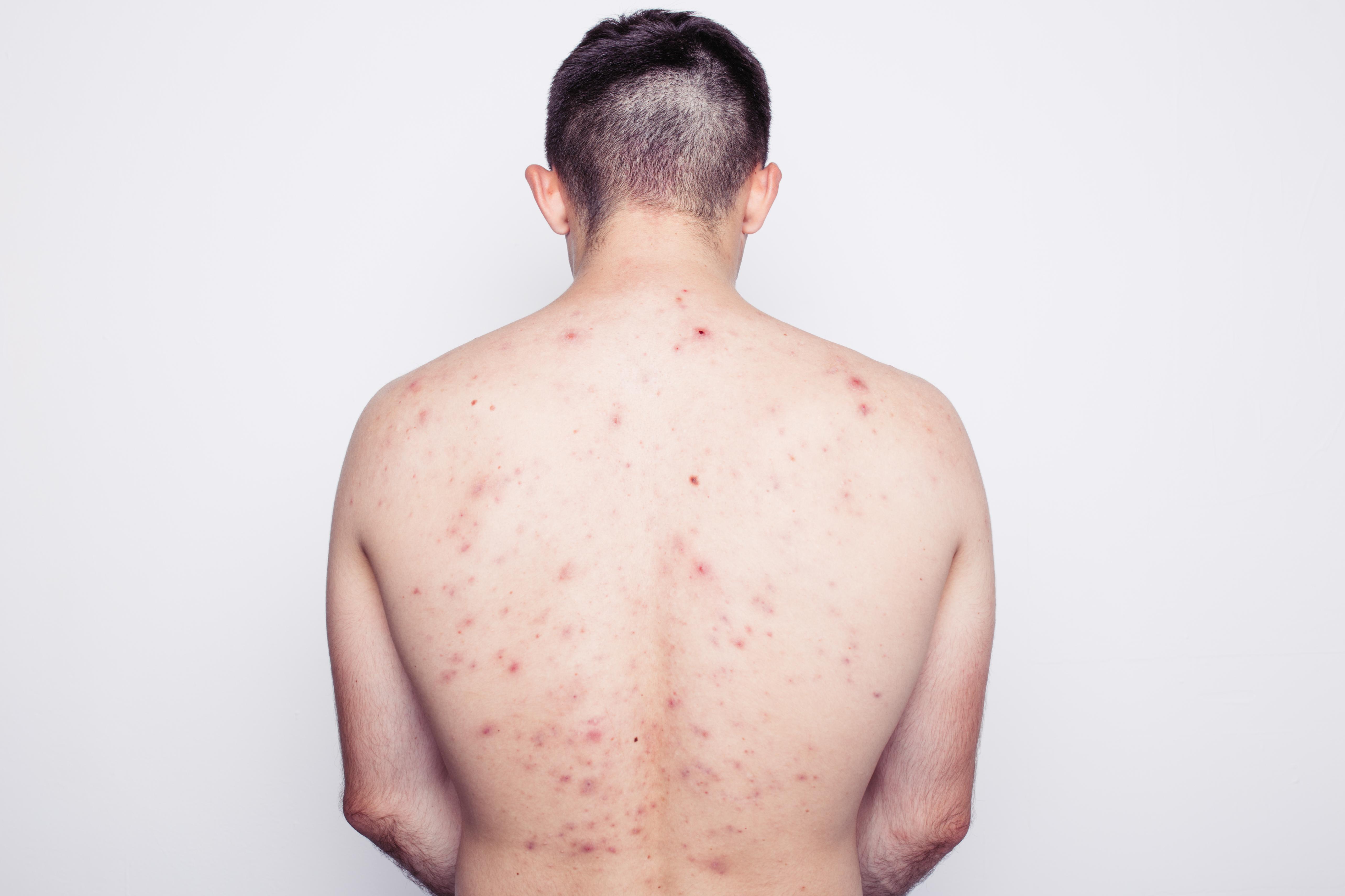 I ansiktet samt på bröst och rygg har vi stora talgkörtlar (men knappt synliga hårstrån) som stimuleras av bland annat hormonpåverkan.