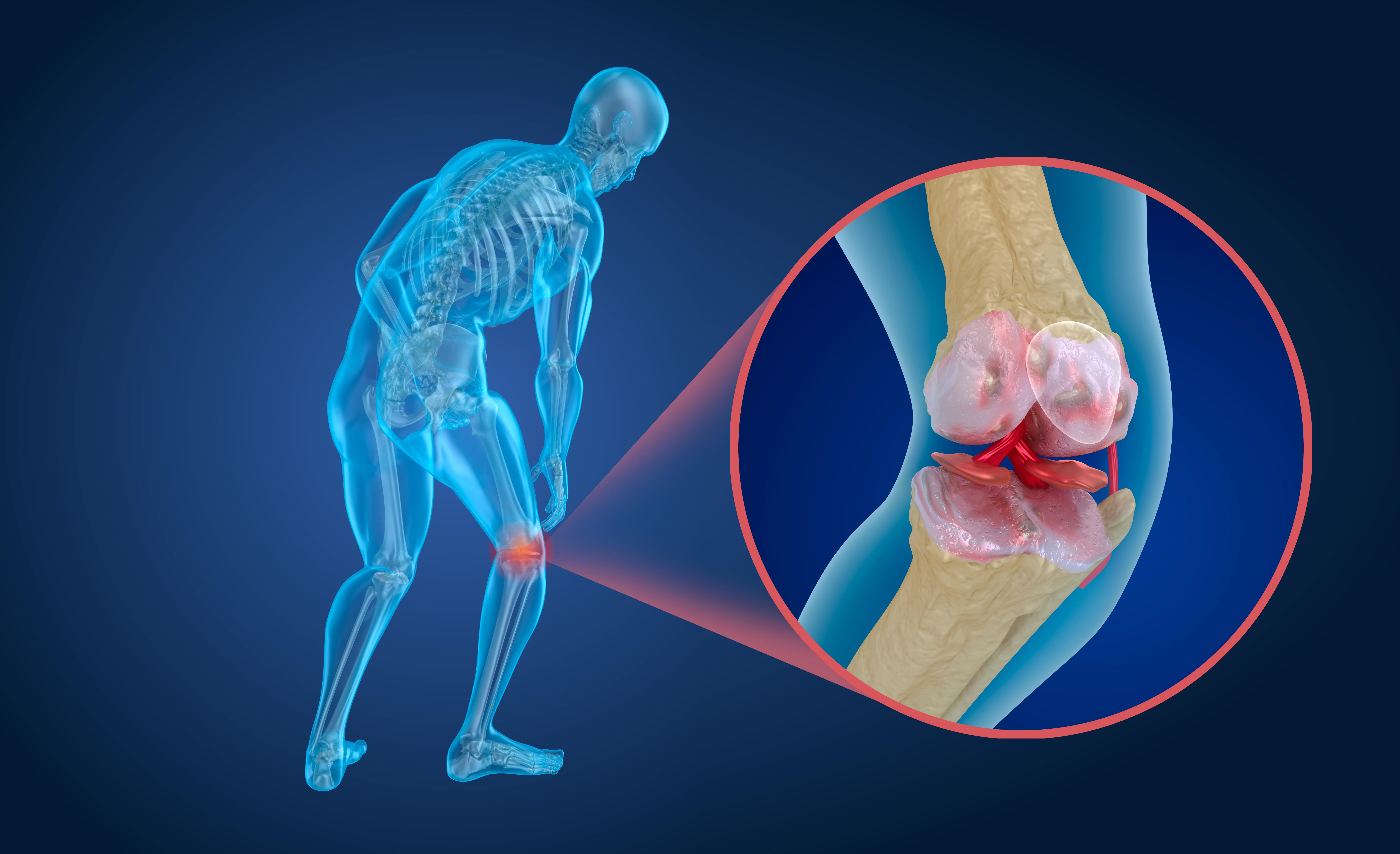Det är viktigt att reagera på frakturer inklusive kotkompressioner (dvs kotfraktur) för att upptäcka osteoporos.