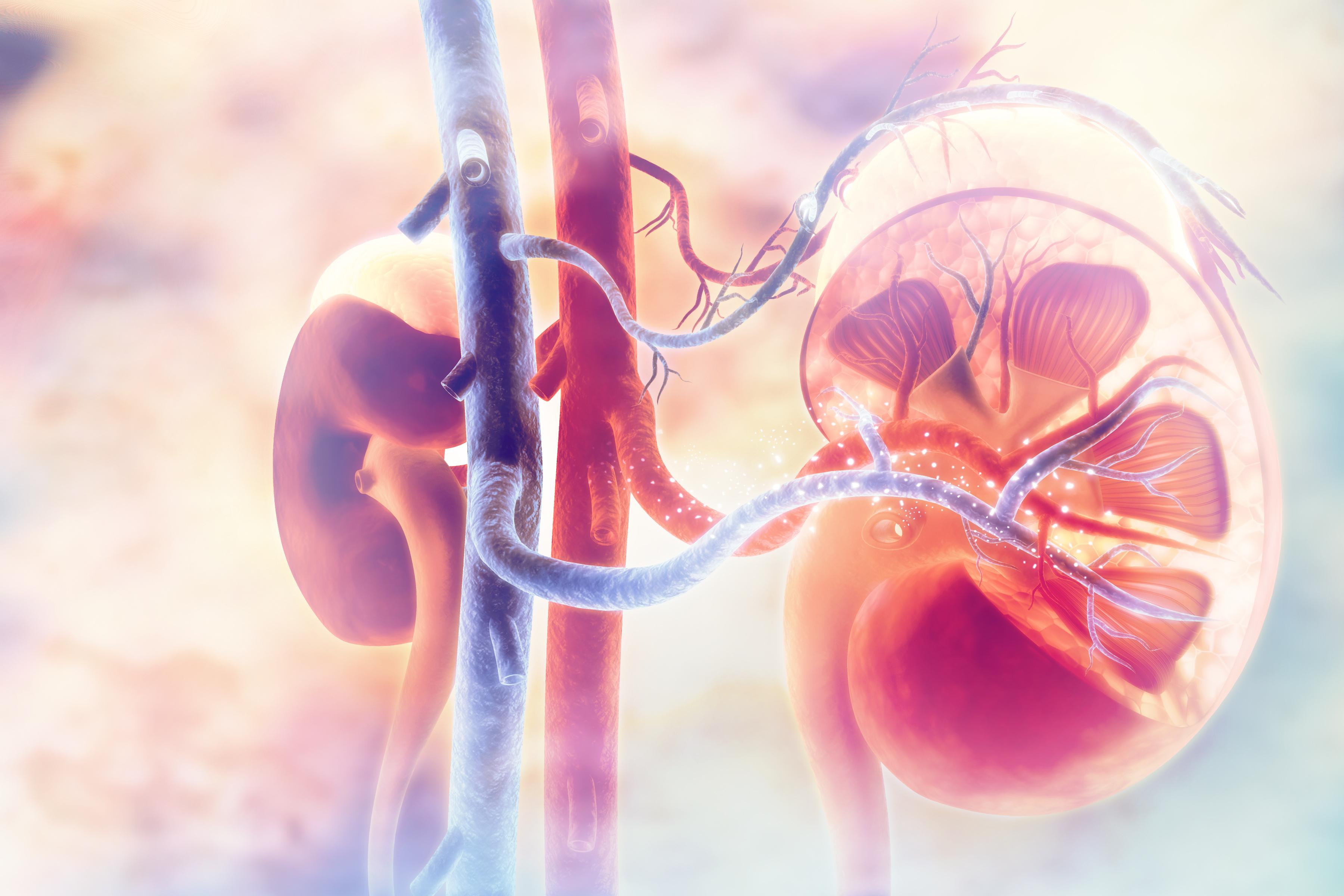 Njurcancer kan vara svårt att upptäcka eftersom sjukdomen ofta saknar symtom.