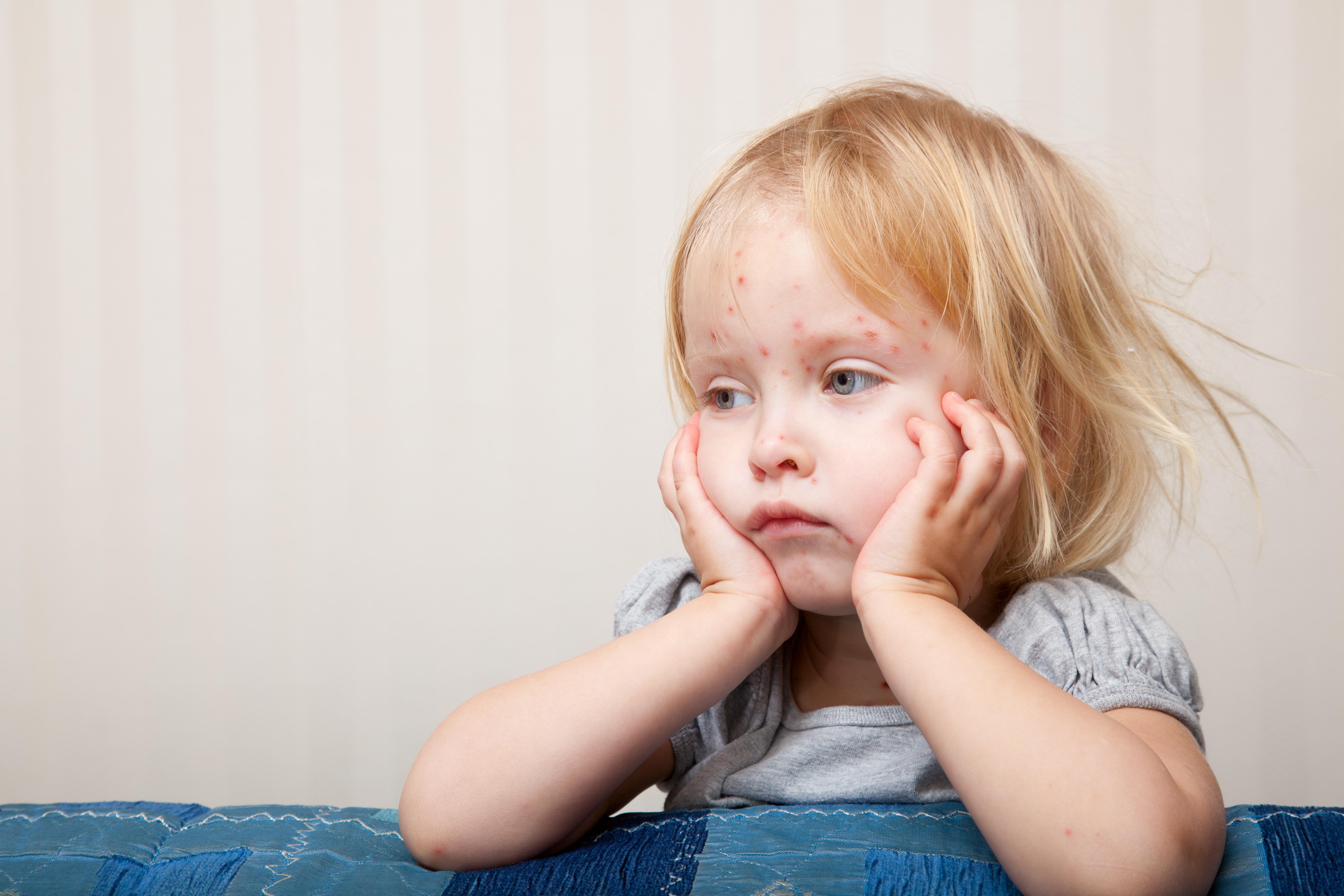 Vattkoppor orsakas av ett virus som smittar från person till person främst via luften runt den som är sjuk.