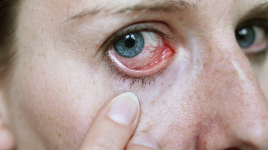 svamp i ögat symtom