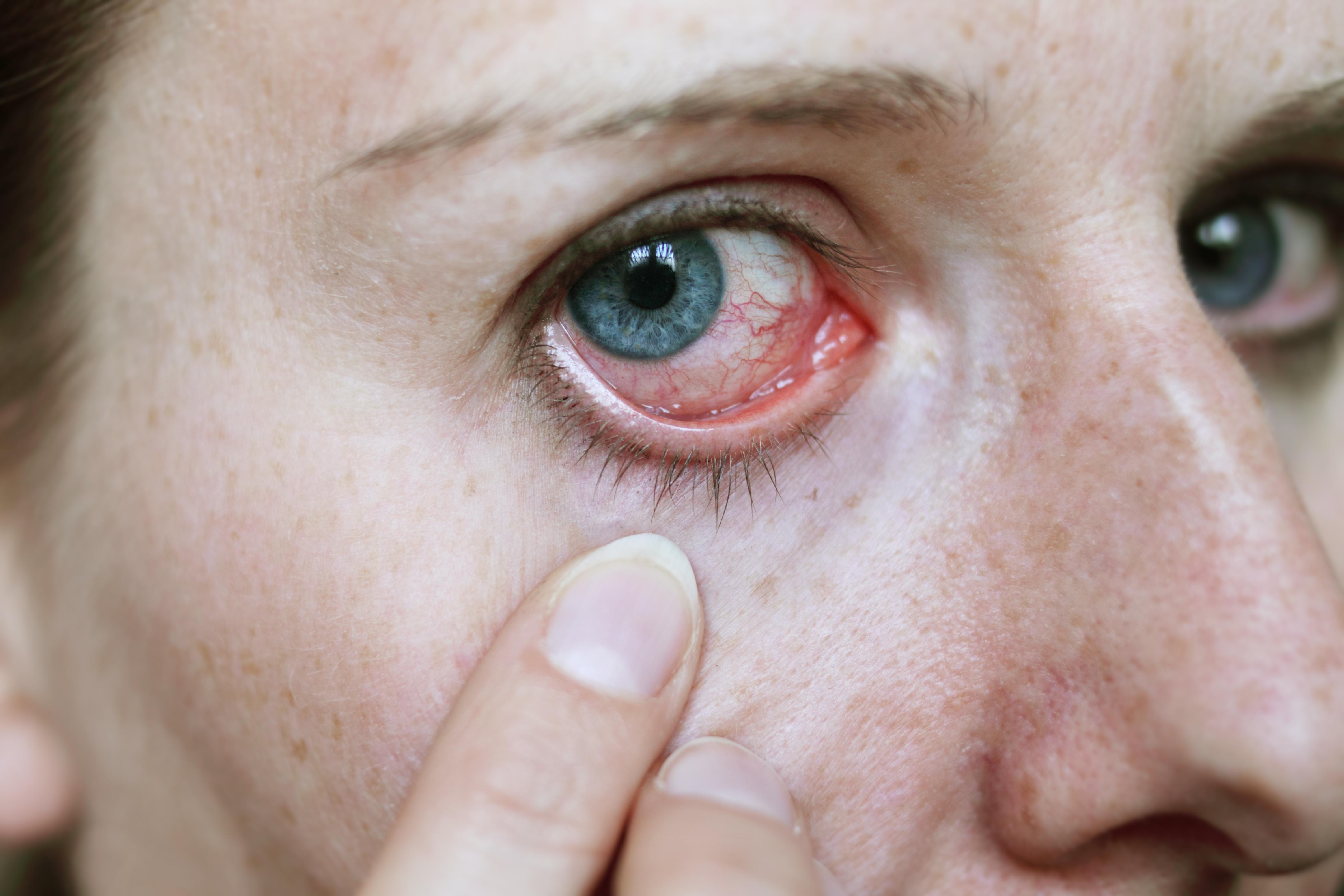 ögoninflammation hur länge