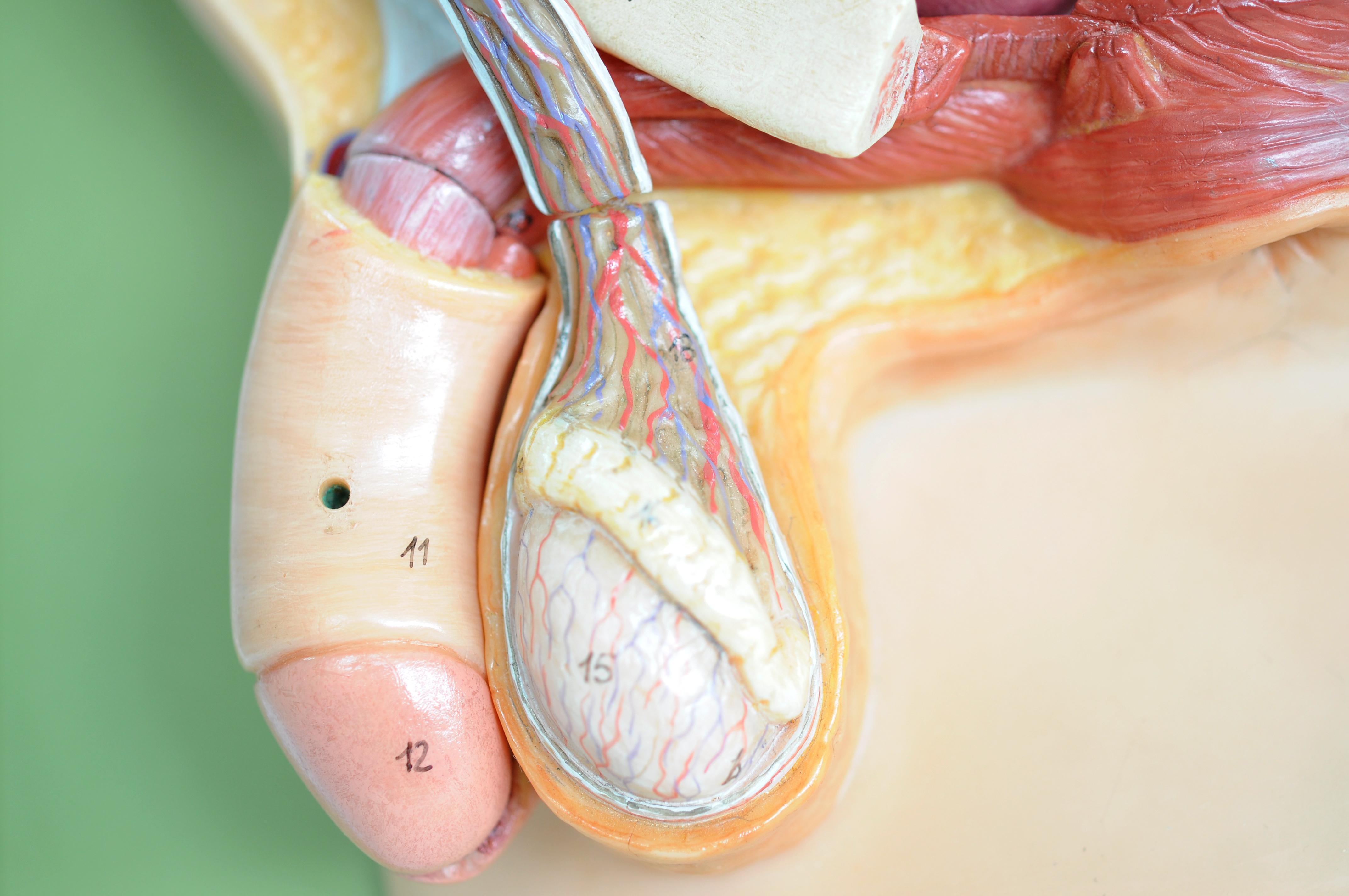 Klinefelters syndrom innebär att testiklarna slutar växa i puberteten.