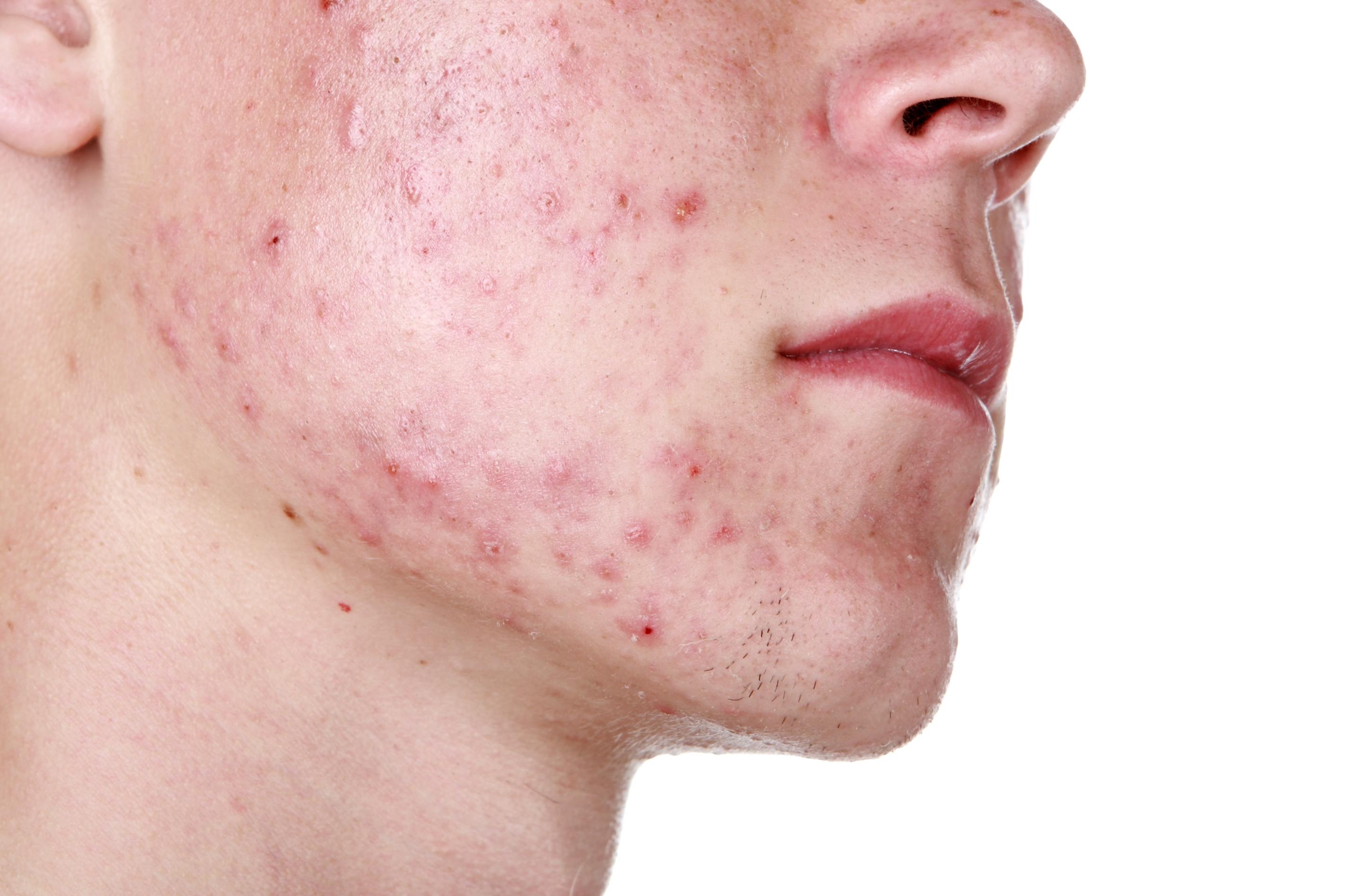 skillnad på acne och finnar